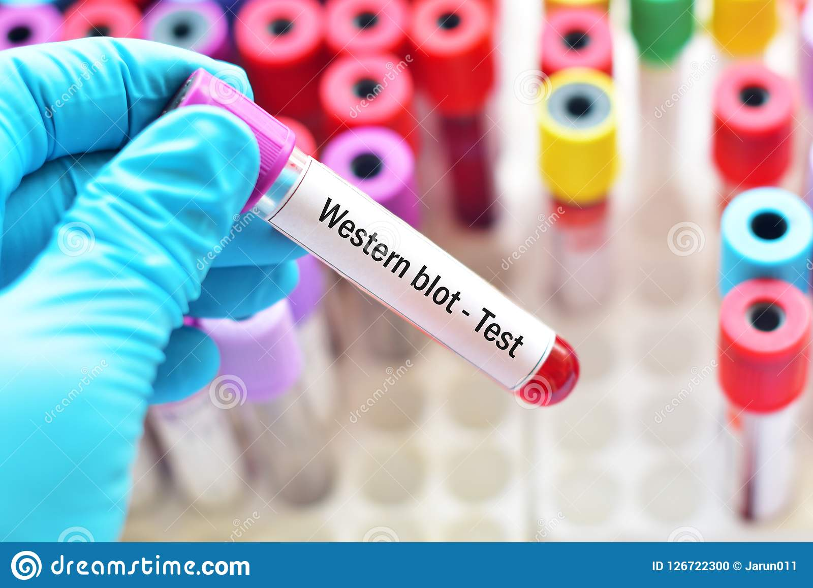 Blood sample tube for Western blot test