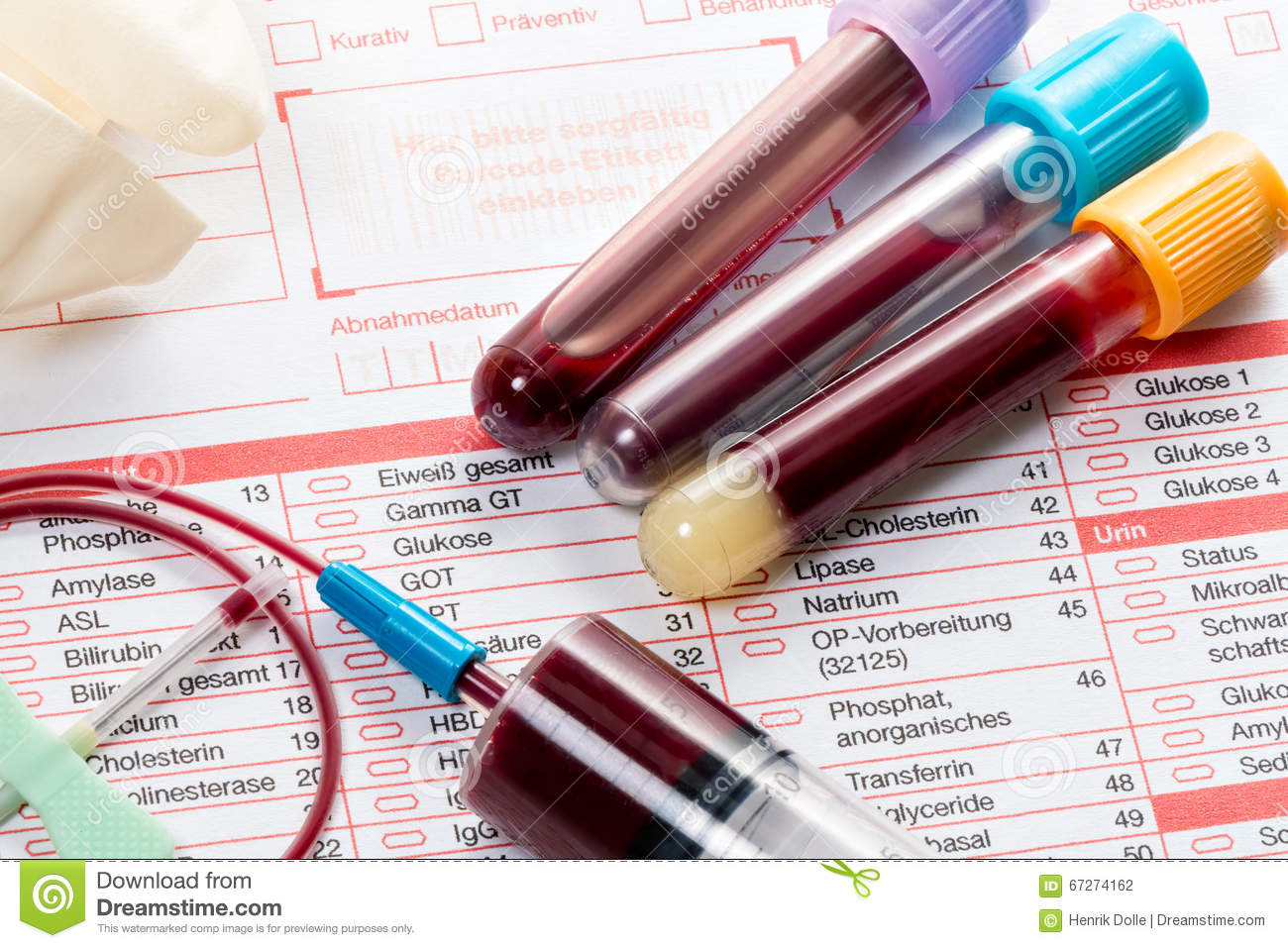 blood test  blood samples on a laboratory form stock photo image 67274162 hockey clip art borders hockey clip art images free