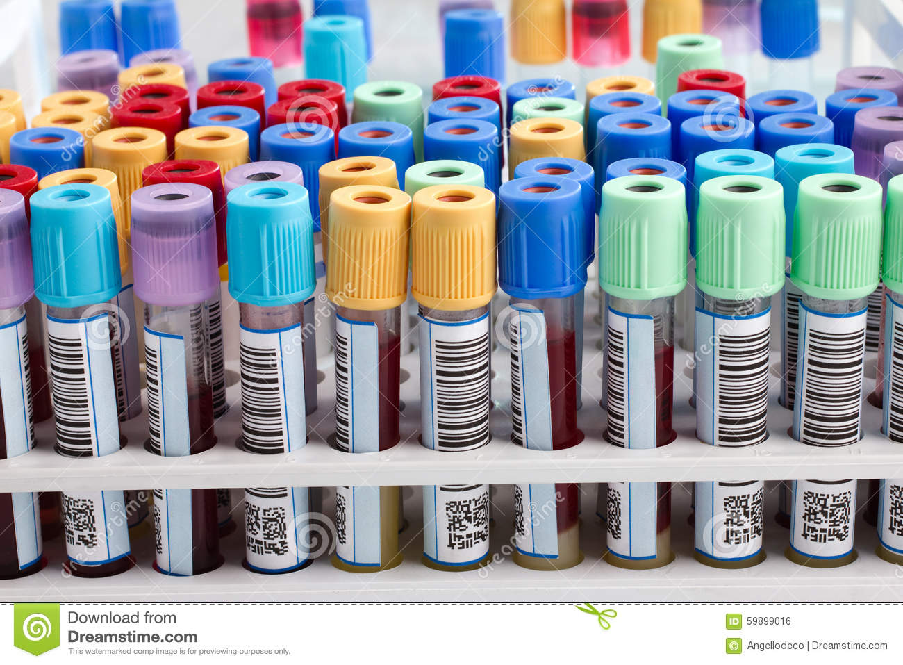 test tube mystery lab report In addition to describing the conventional rules about the format and content of a lab report, we if you capped a test tube immediately in scientific reports.
