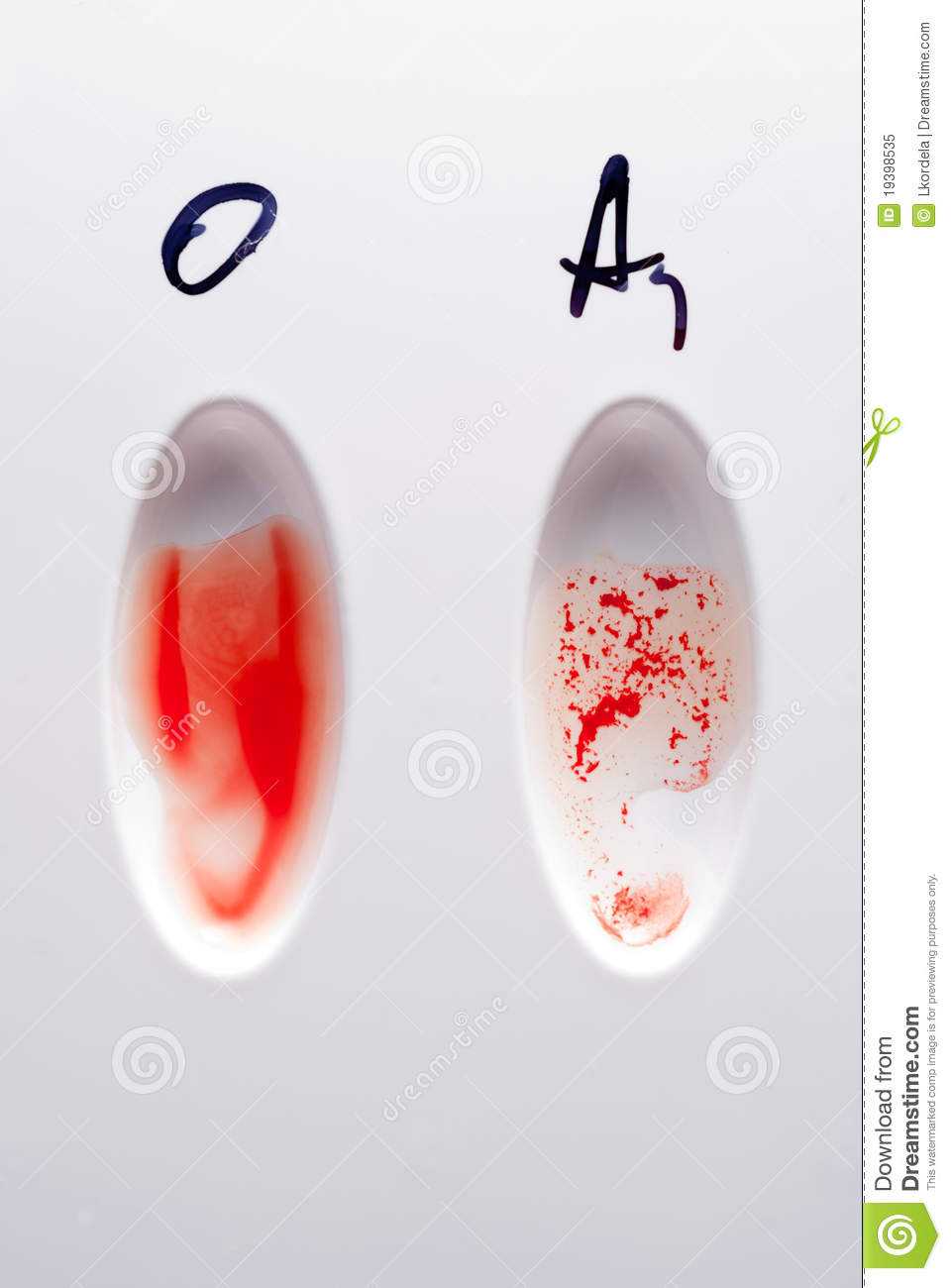 Blood Type Test Royalty Free Stock Photo Image 19398535
