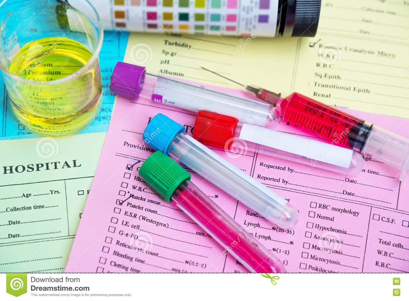 Blood And Urine Tests Developed To >> Blood And Urine For Health Check Blood Samples And Urime Sample