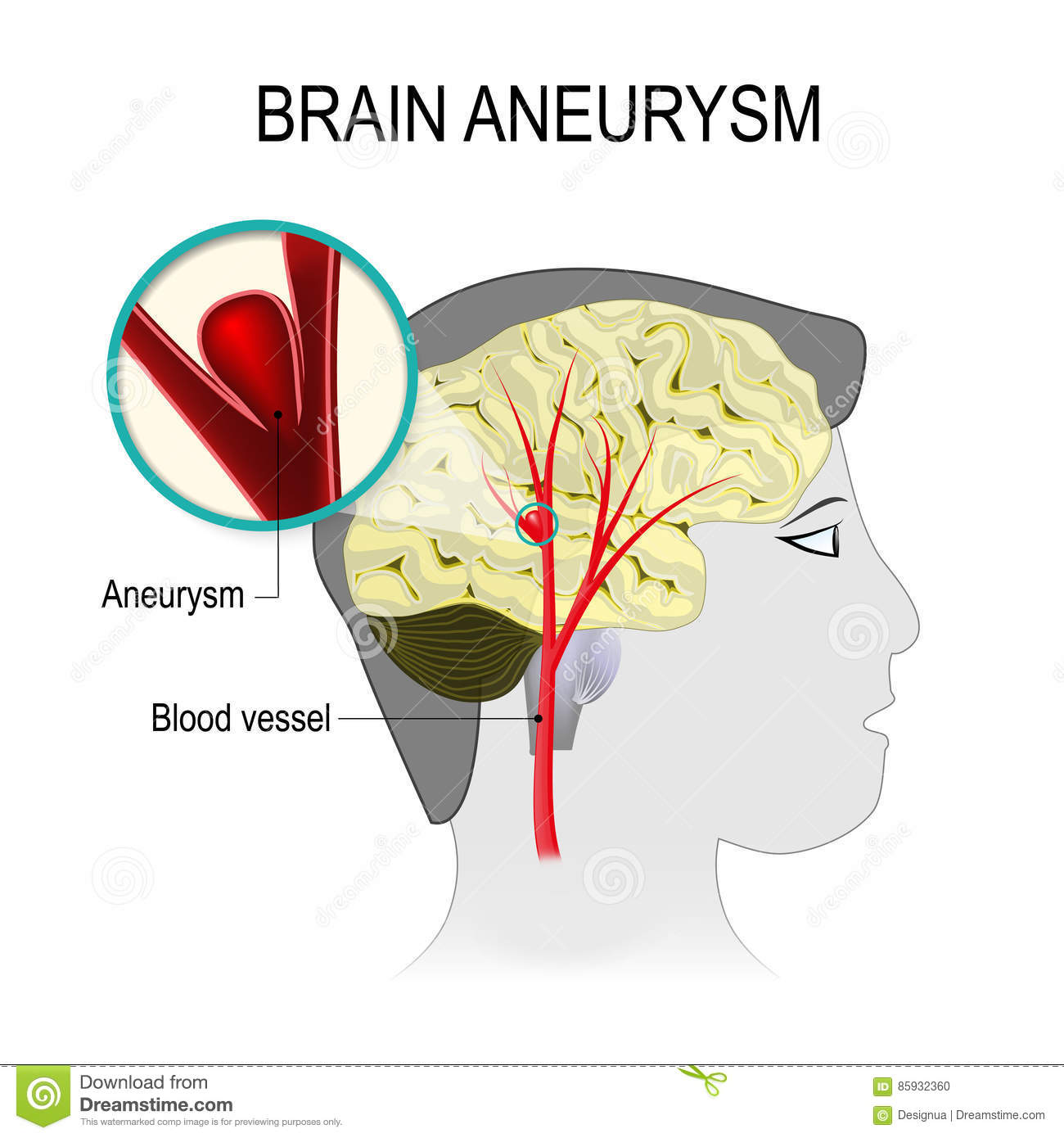 Blood Vessels In The Brain With Aneurysm Stock Vector ...