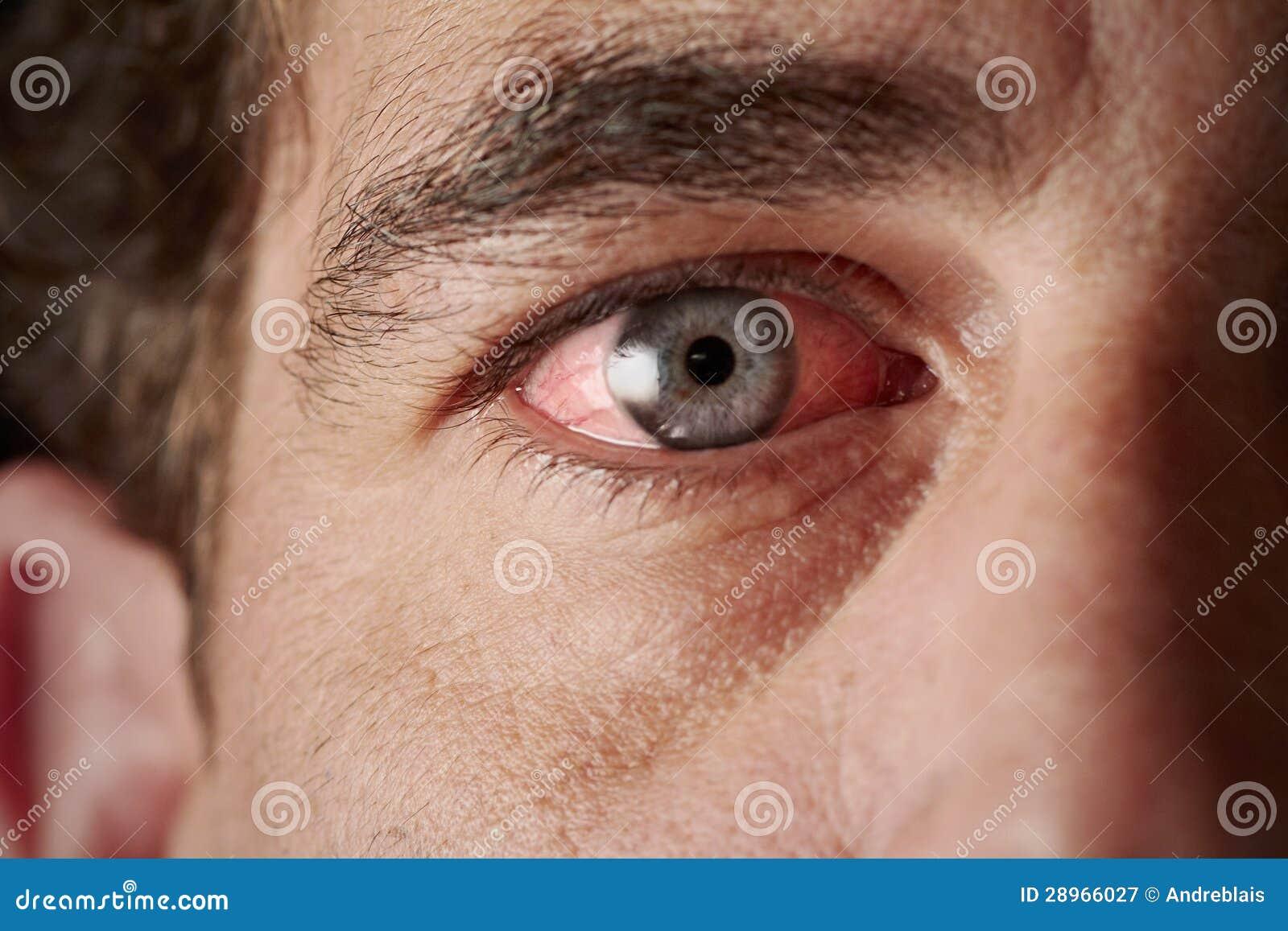 Bloodshot oko