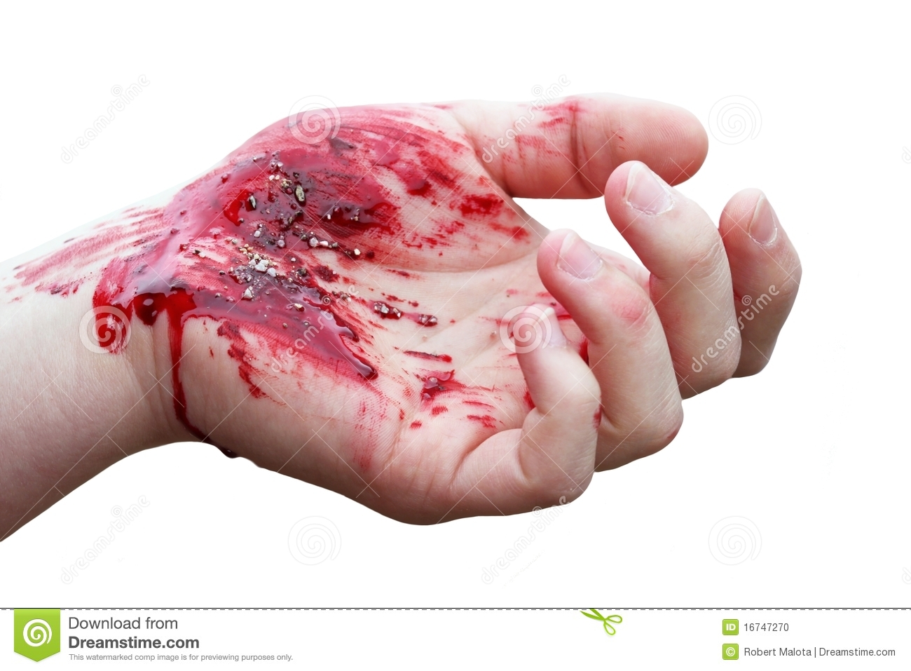 Bloody Hand Stock Photo Image Of Abrasion Fingers Skin