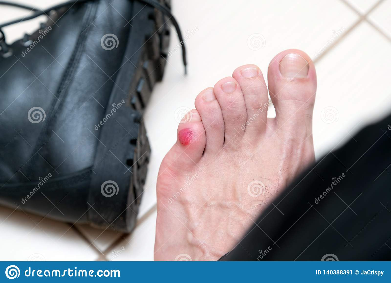 Bloody terrible blister on human feet with new black leather shoes laying around