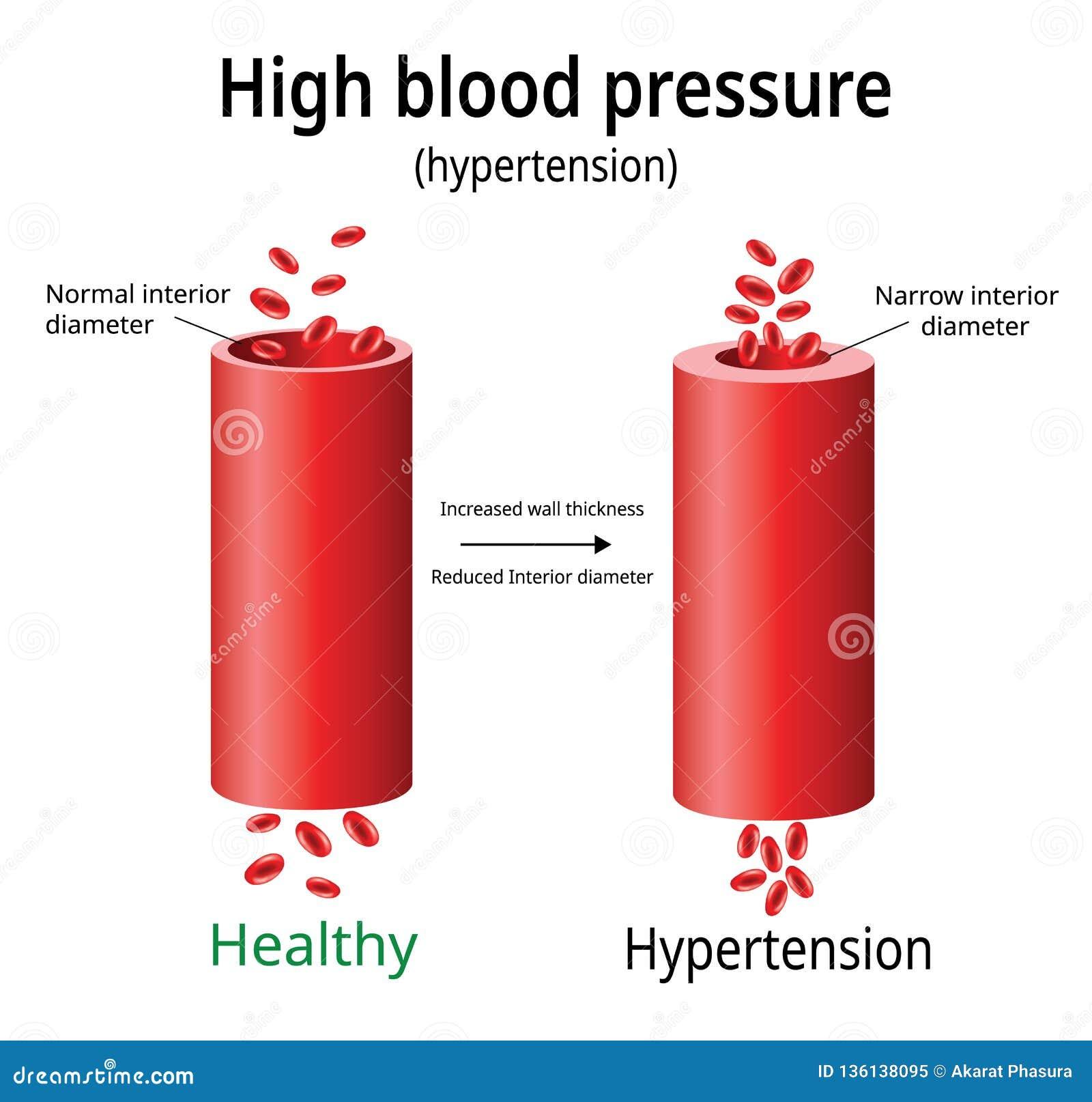 Bluthochdruck, Bluthochdruckvektor, Vektor Abbildung..
