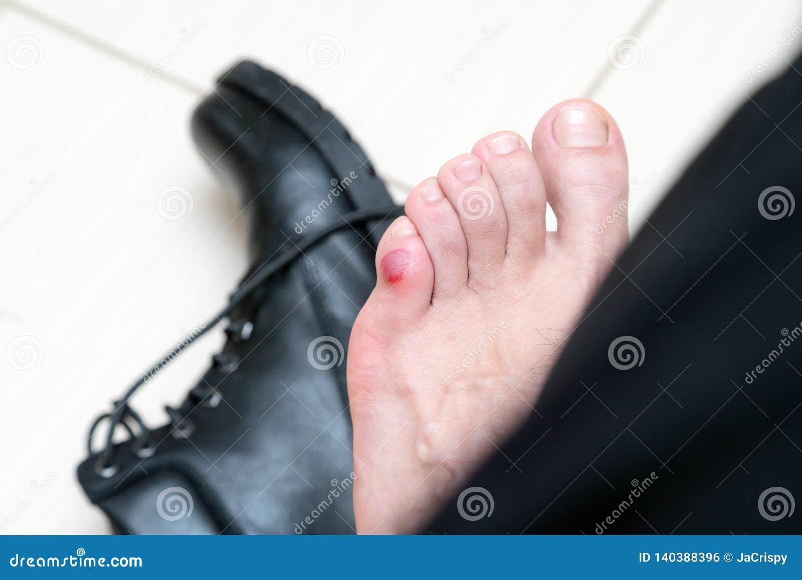 Blutige schreckliche Blase auf menschlichen Füßen mit den neuen schwarzen Lederschuhen, die herum legen