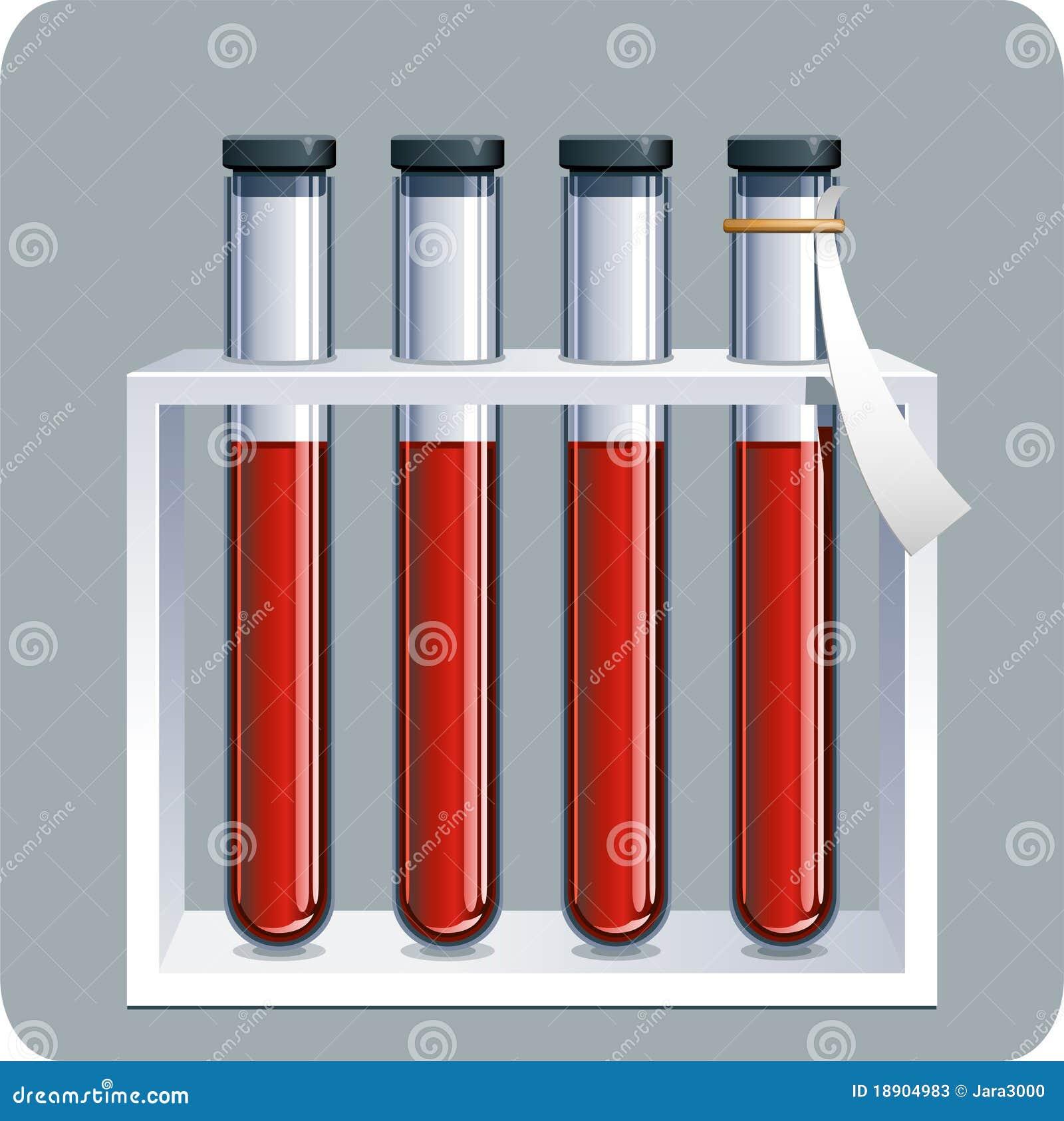 Blutproben