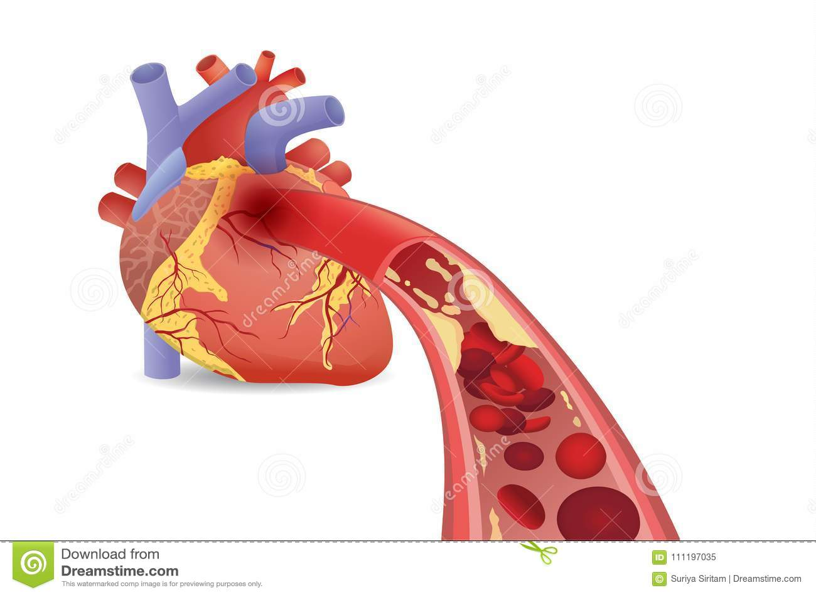 Blutzelle Kann ` T Fluss In Menschliches Herz Weil Verstopfte ...