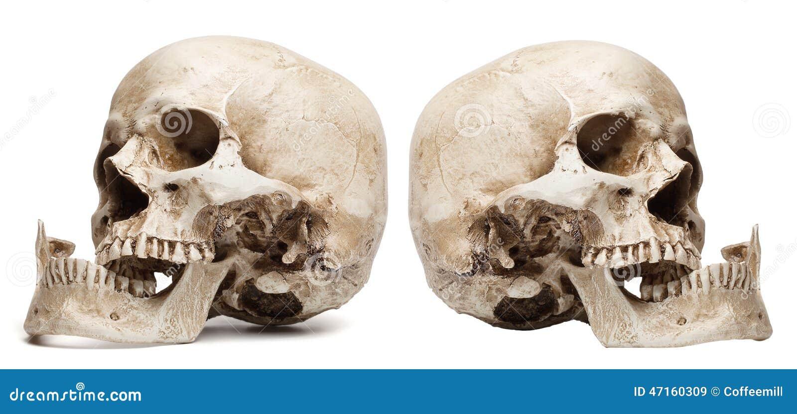 Boca Cráneo-abierta, Mandíbula Roto Imagen de archivo - Imagen de ...