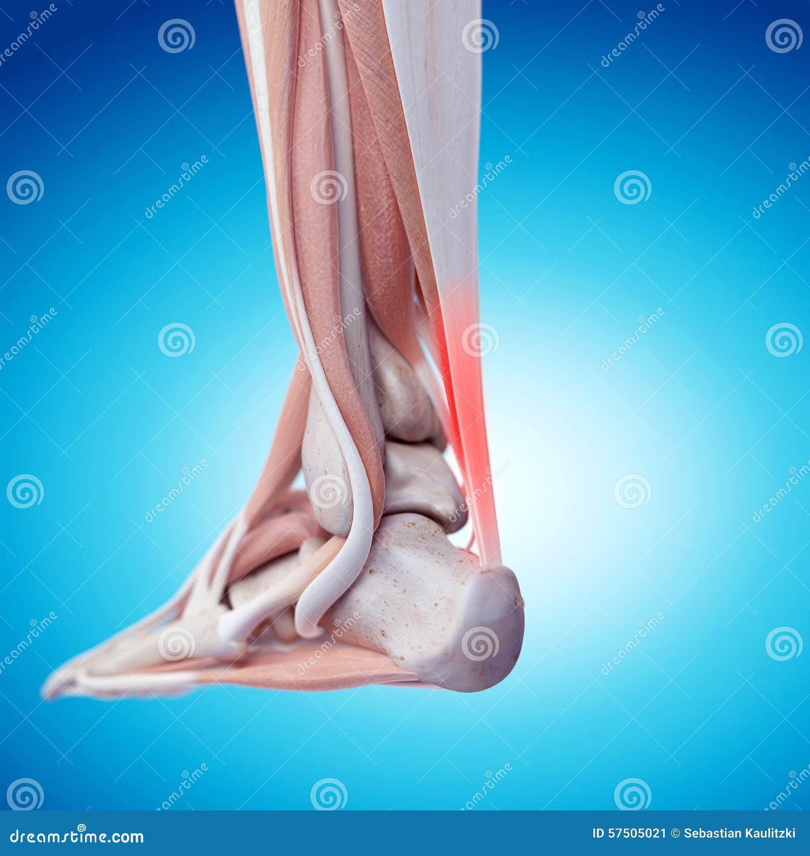 Bolesny Achilles ścięgno