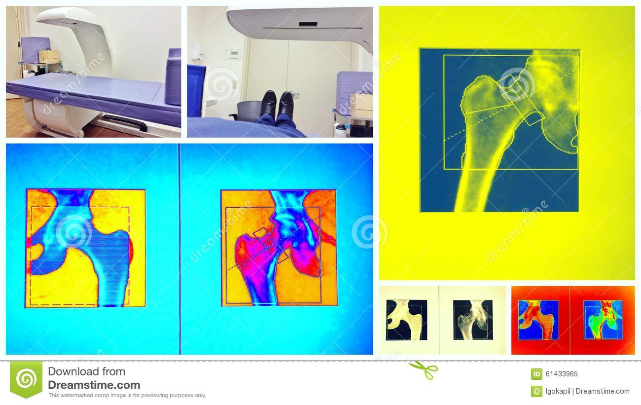Bone density scan colorful collage
