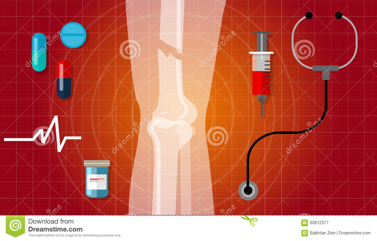 Crushed Human Bone : Xray of broken femur bone royalty free stock photo
