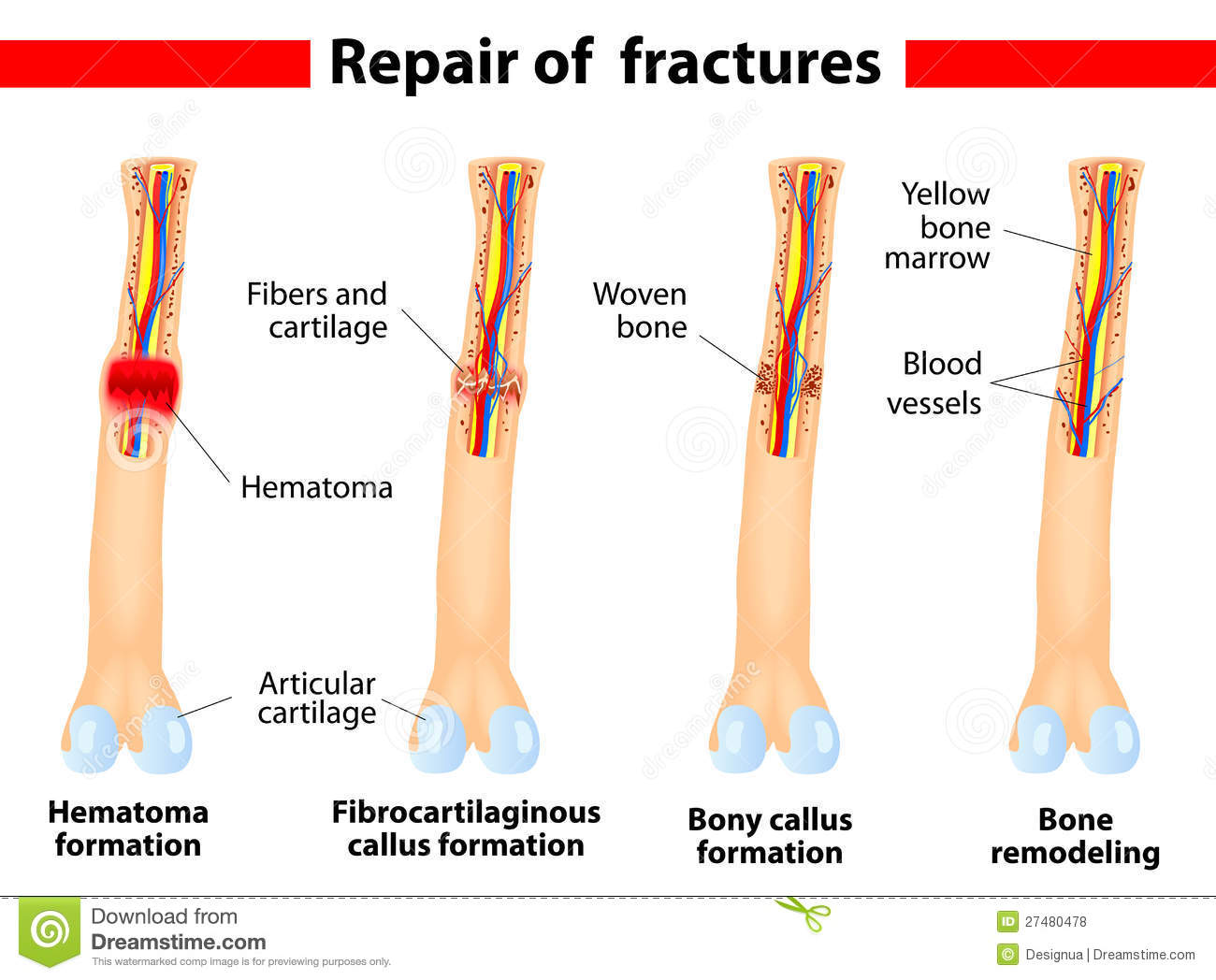 four stages of healing a bone fracture