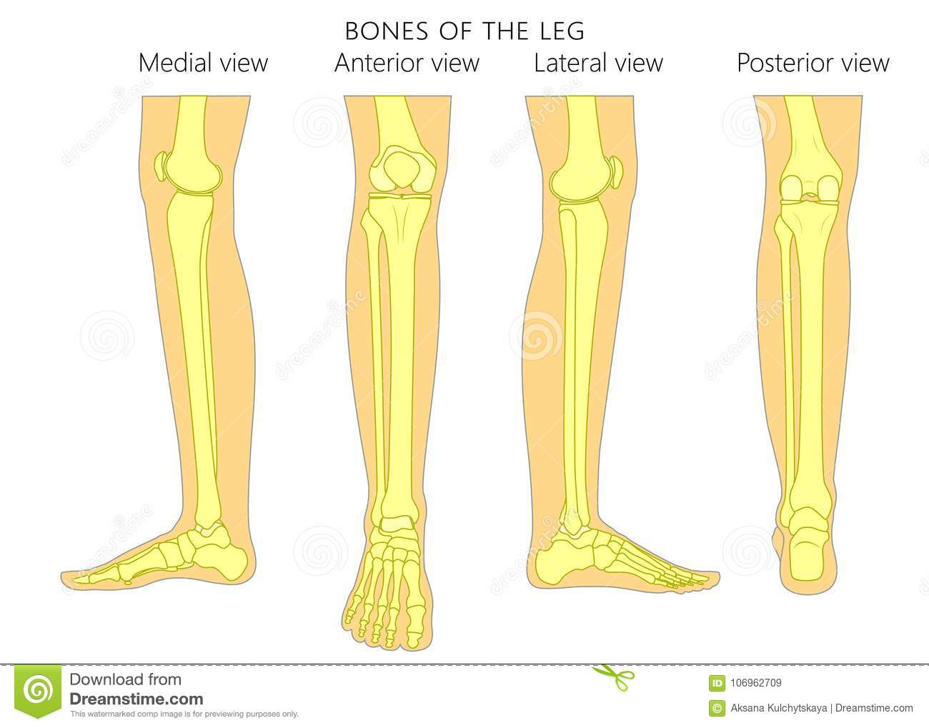 Bone Fracture_Leg Anatomy Bones Stock Vector - Illustration of ...