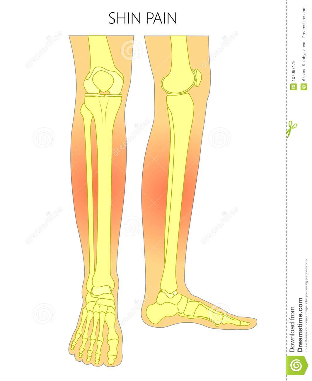 Bone Fractureshin Pain Bones Of The Leg Stock Vector Illustration