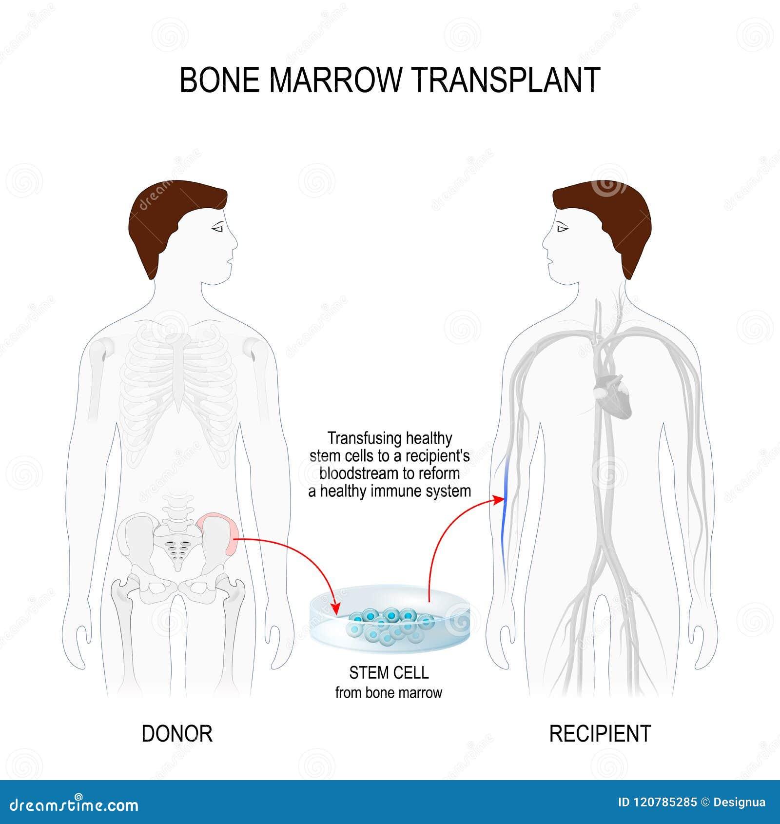 Bone Marrow Transplantation Stock Vector - Illustration of crest ...