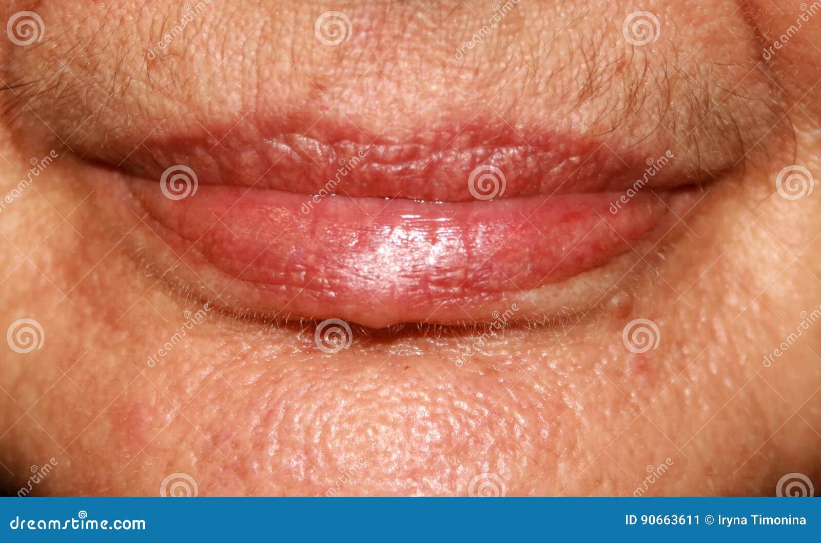 Bordos silicone Dobras Nasolabial Enrugamentos em torno da boca