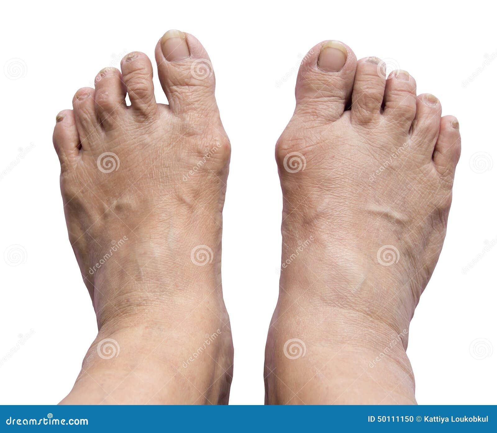 borsite alluce piede