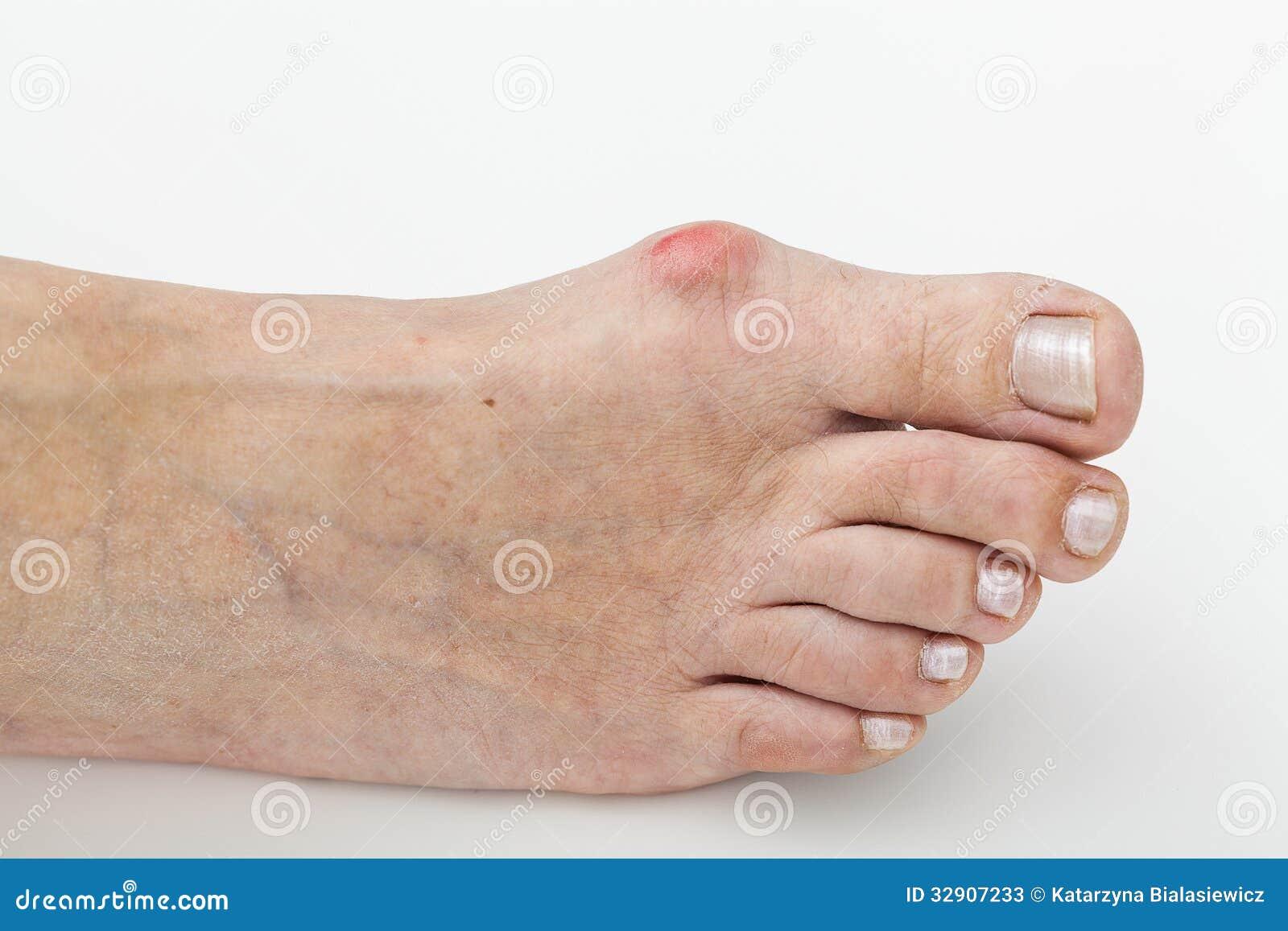 Creme mediche da un fungo di piede