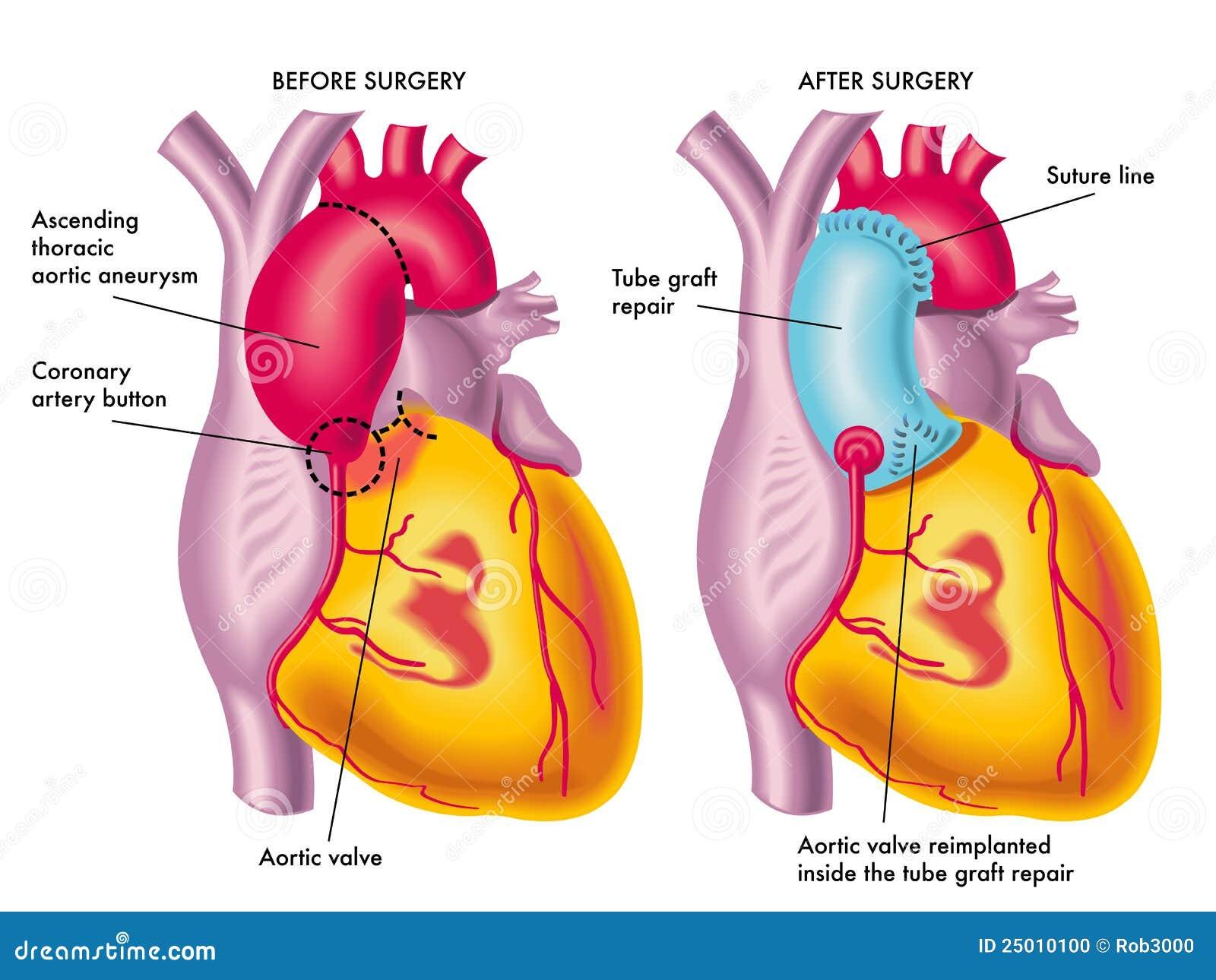 Borst aortaaneurisma