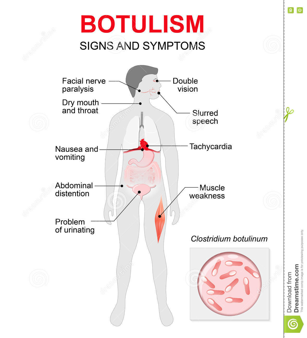 botulism human silhouette with highlighted internal organs stock