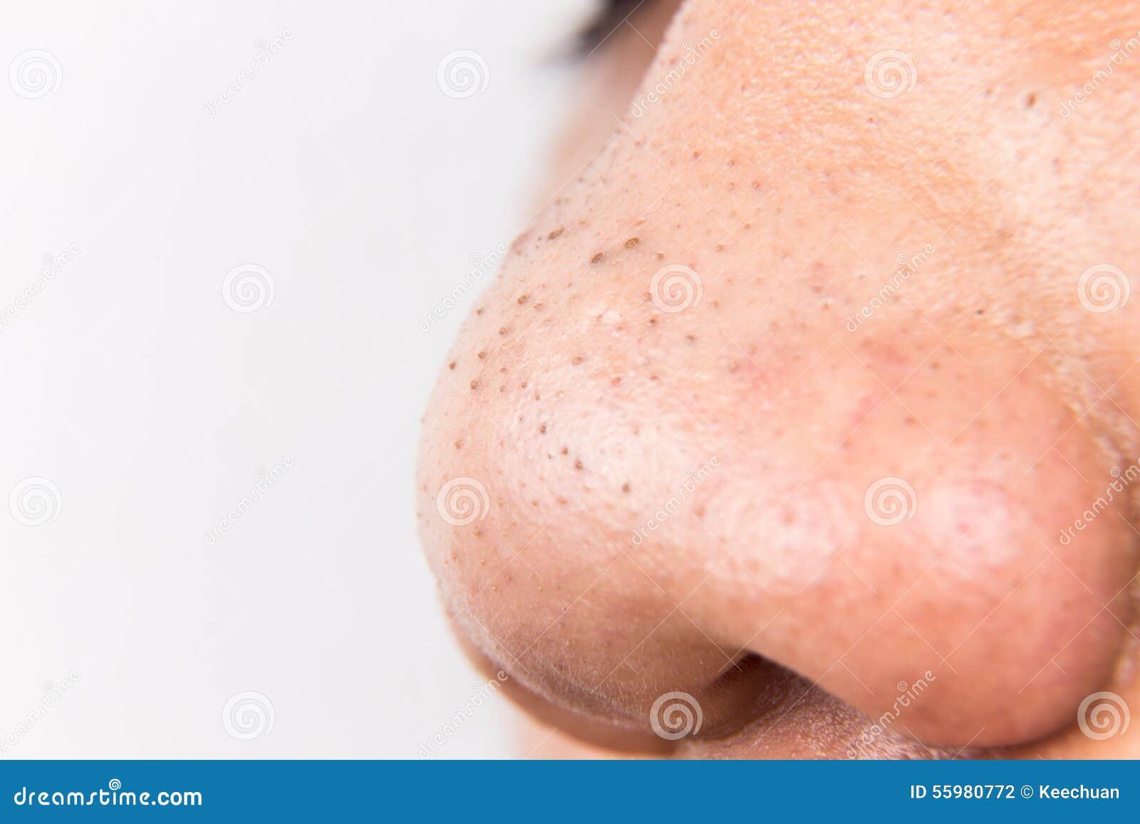 La peau de mains sèche au psoriasis