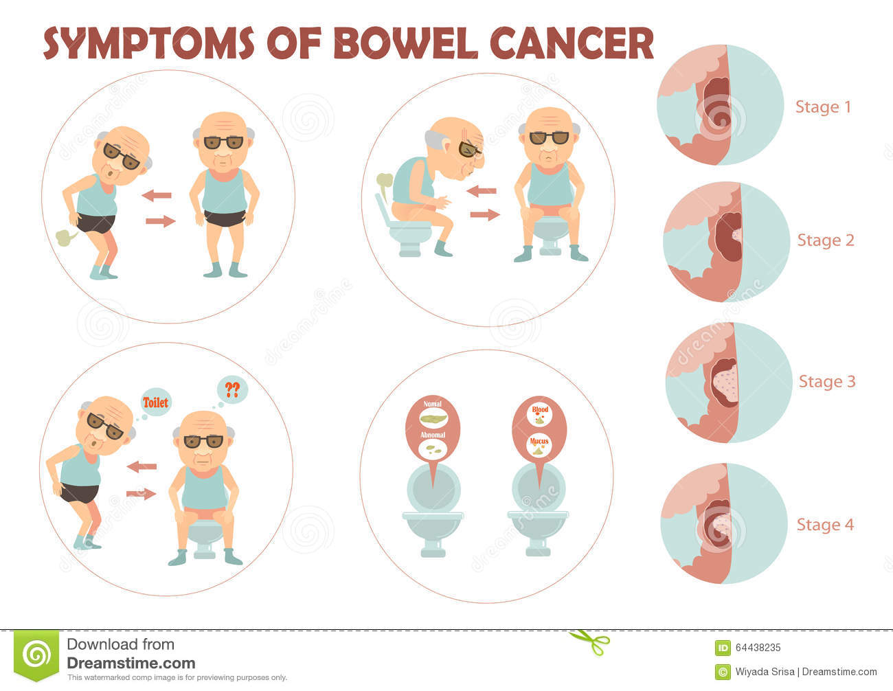 Image Result For Colon Cancer Tumor Size