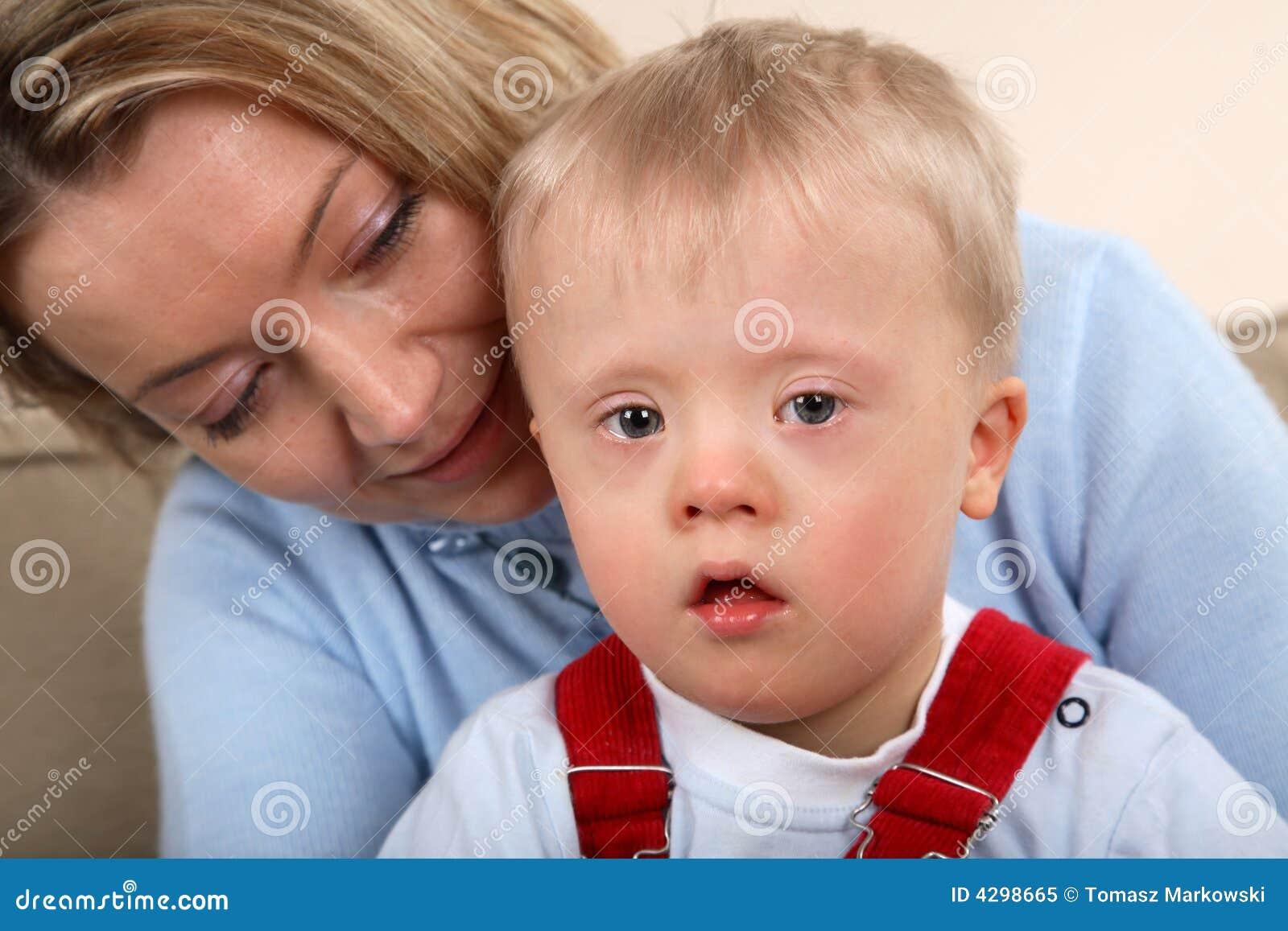 Олигофрения у детей фото