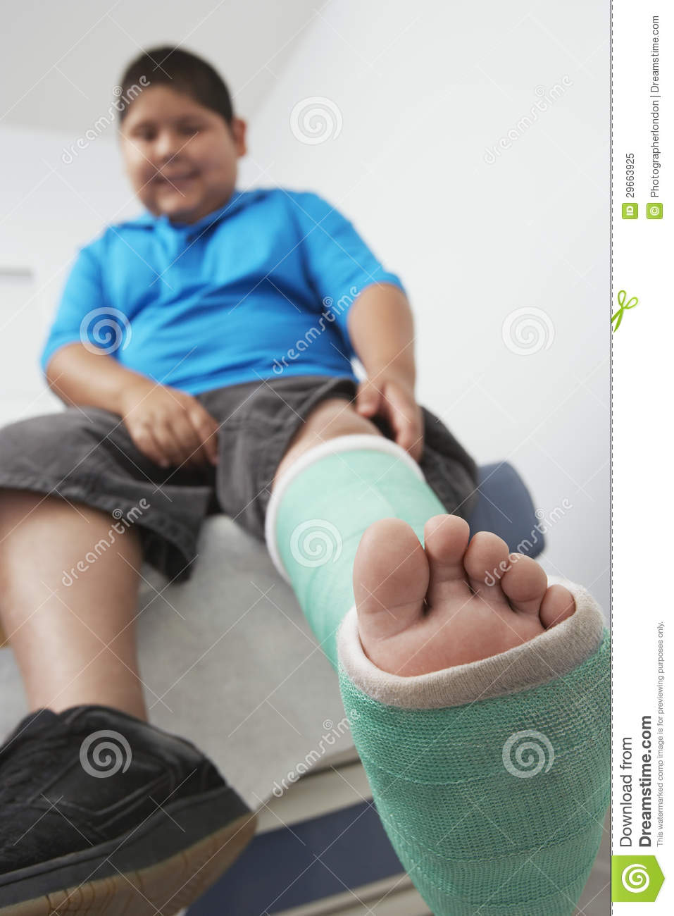 boy with leg in plaster cast royalty free stock photo