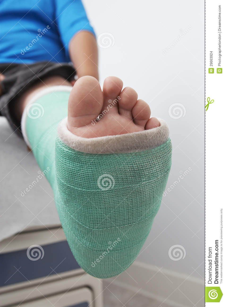 Boy's Leg In Plaster Cast Stock Images - Image: 29663924