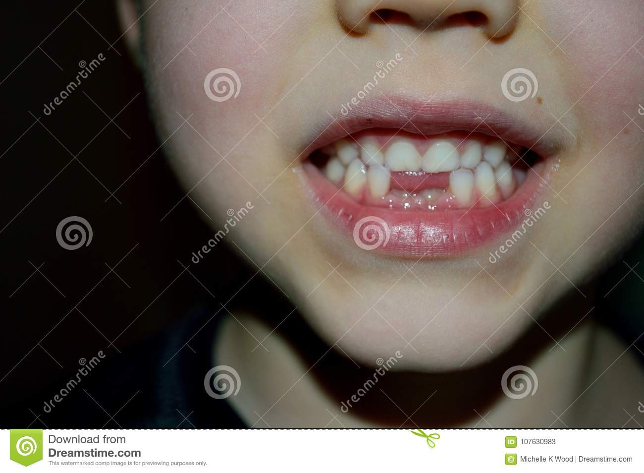 Boy showing off two new teeth