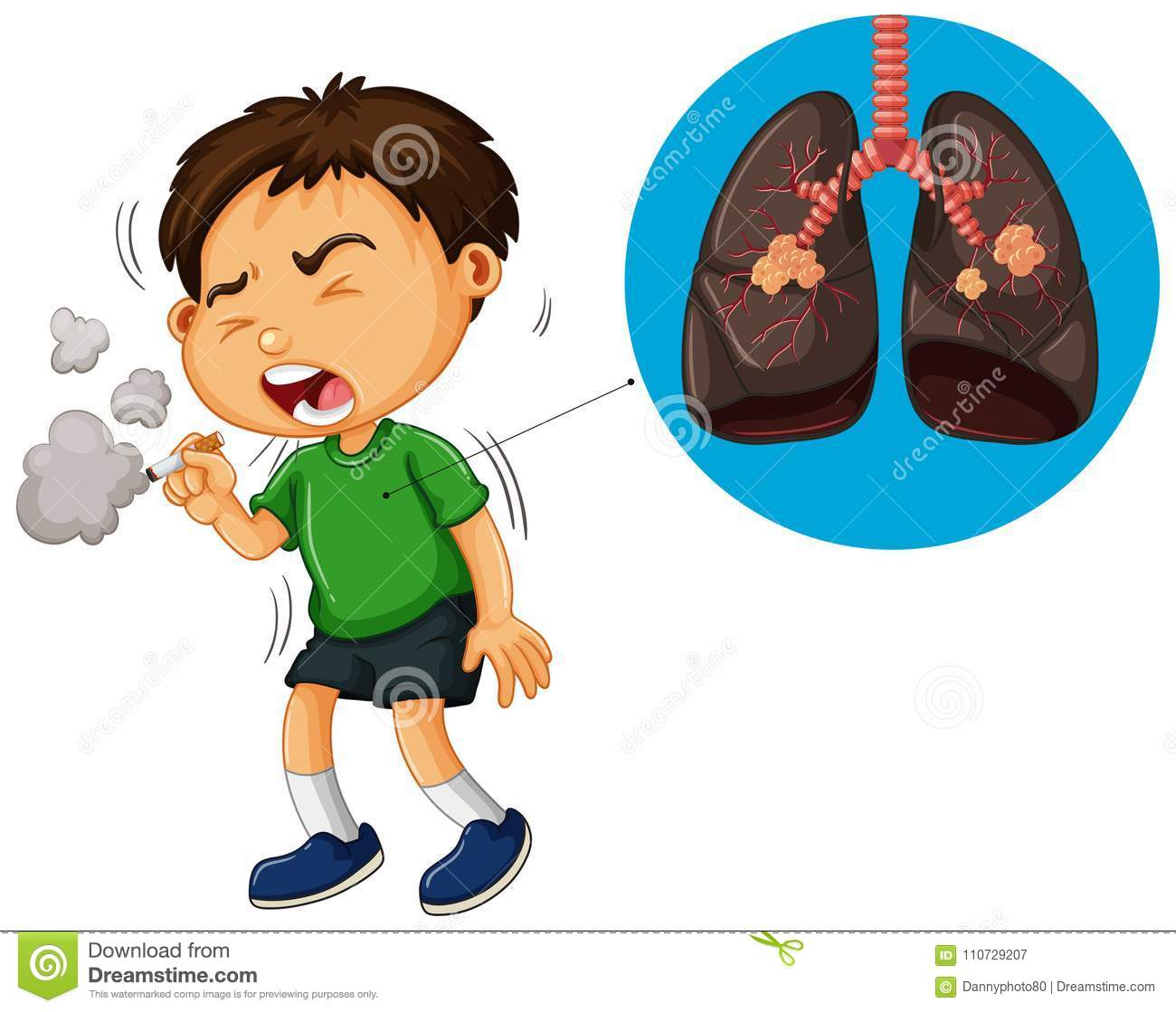 Boy Smoking Cigarette And Unhealthy Lungs Diagram Stock Vector