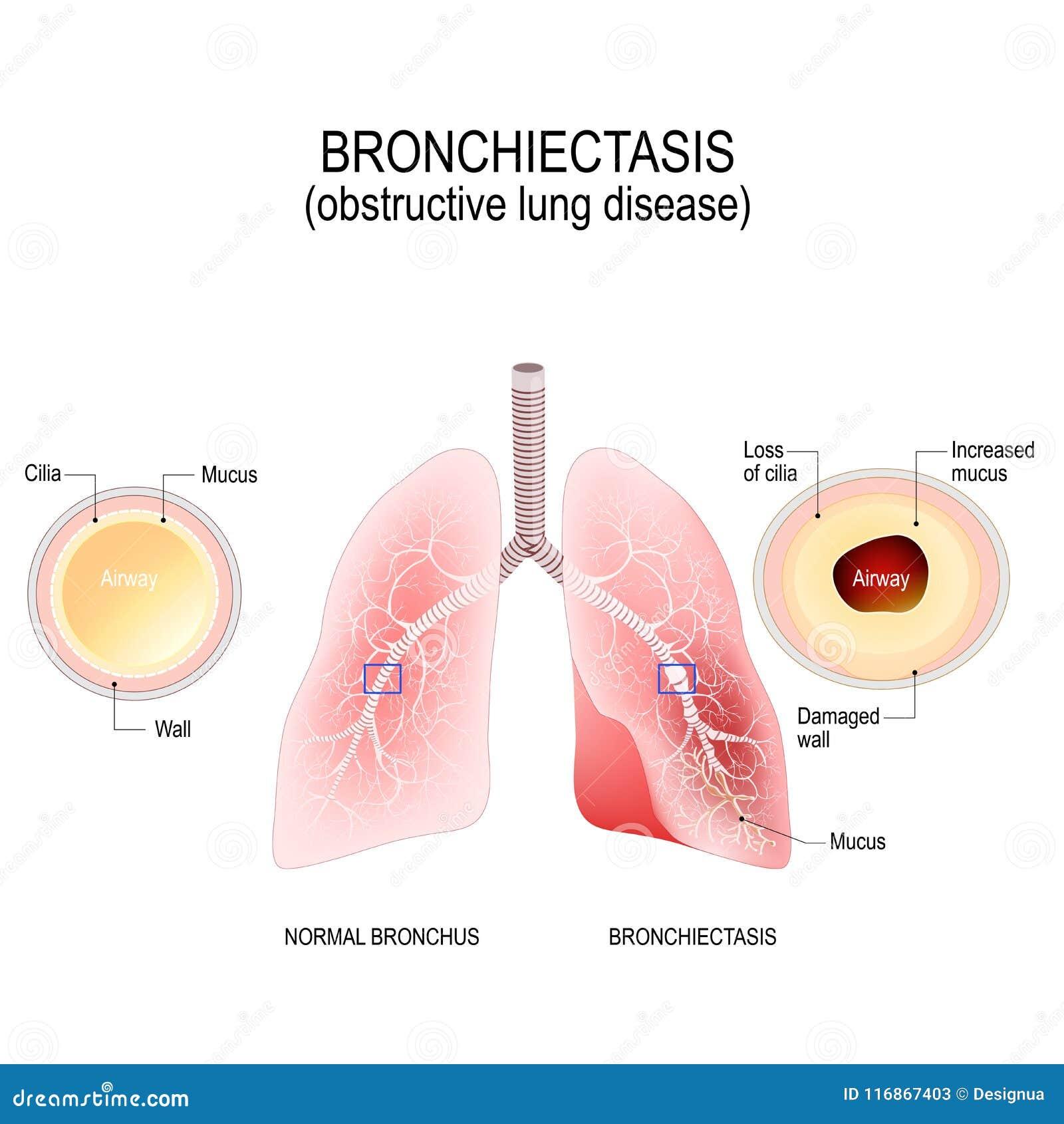 Brônquio e bronquectasia normais doença pulmonar obstrutiva