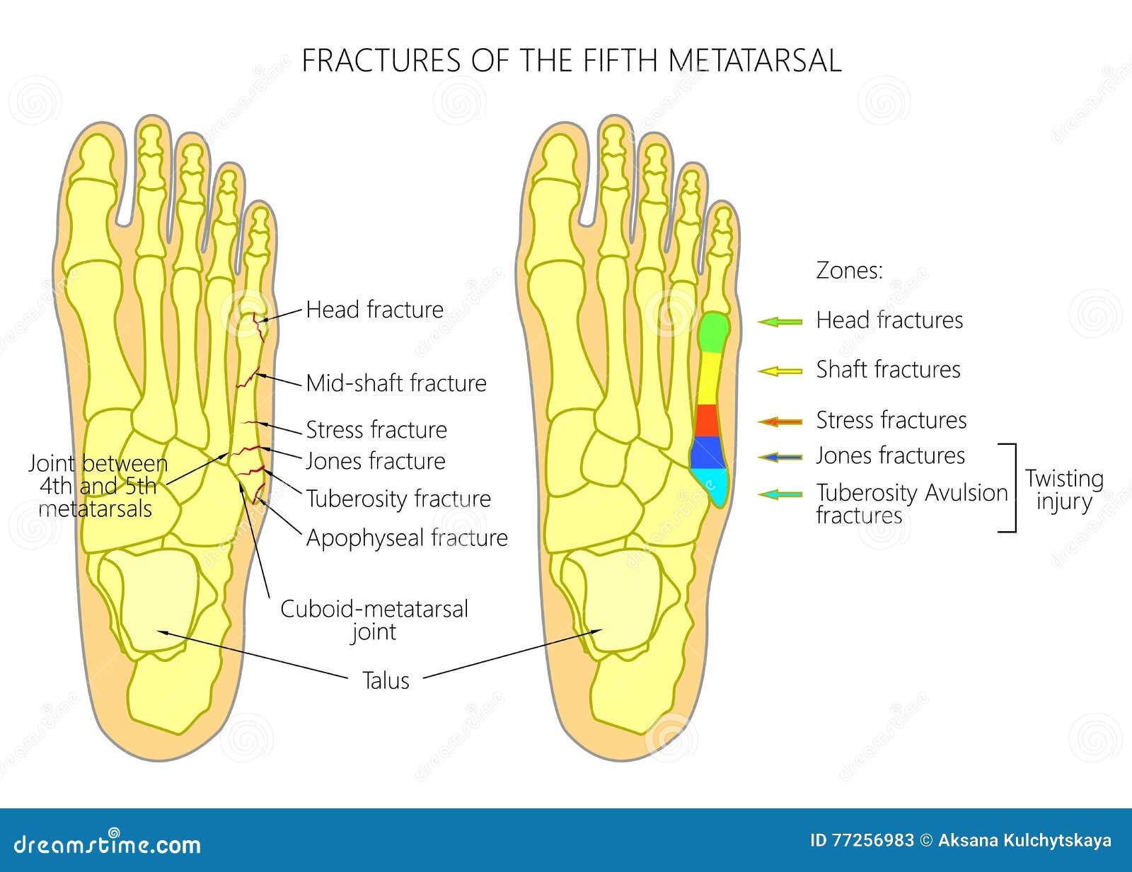 Brüche des 5. Metatarsal vektor abbildung. Illustration von anatomie ...