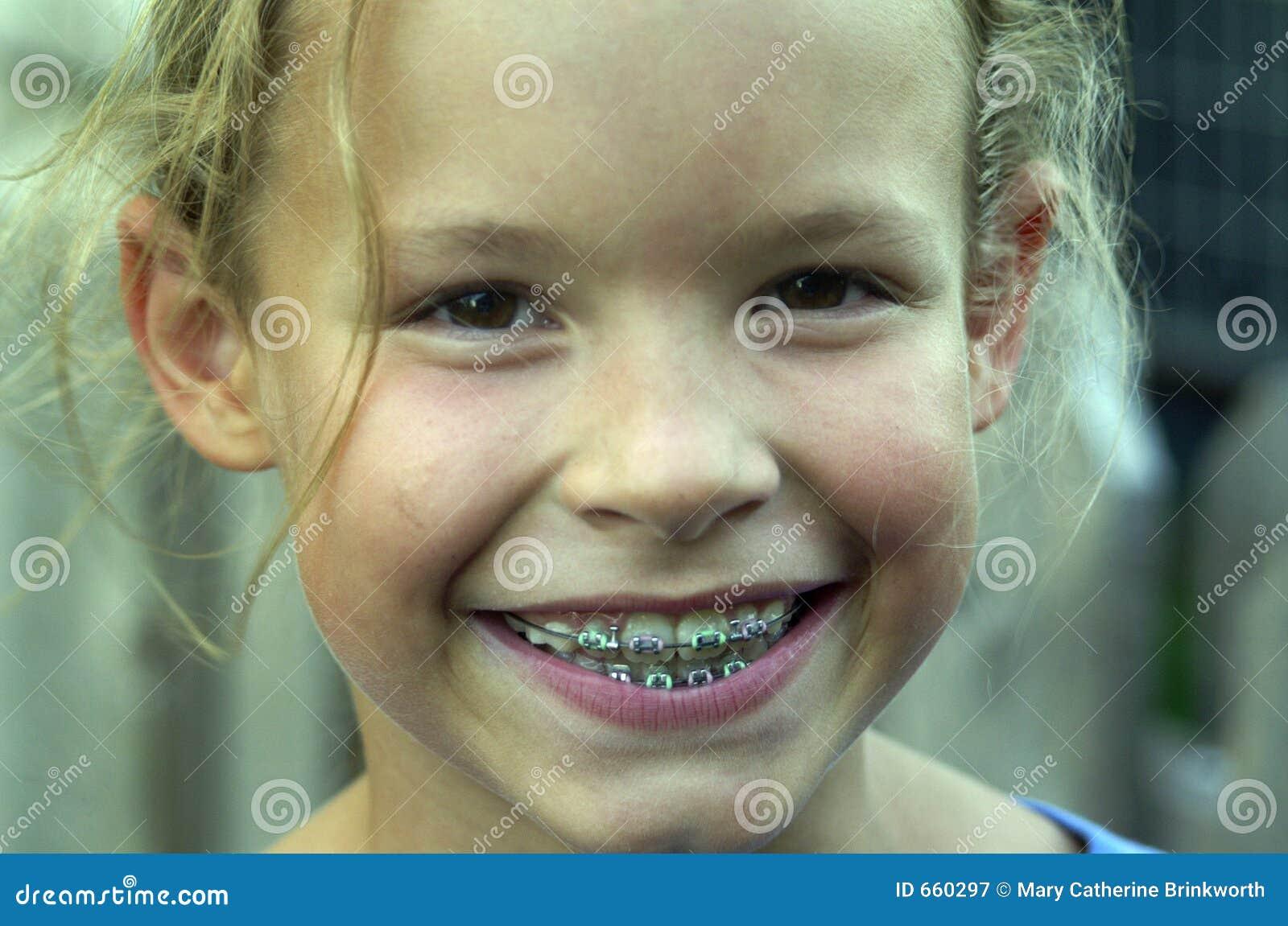 Кривые зубы у детей брекеты фото