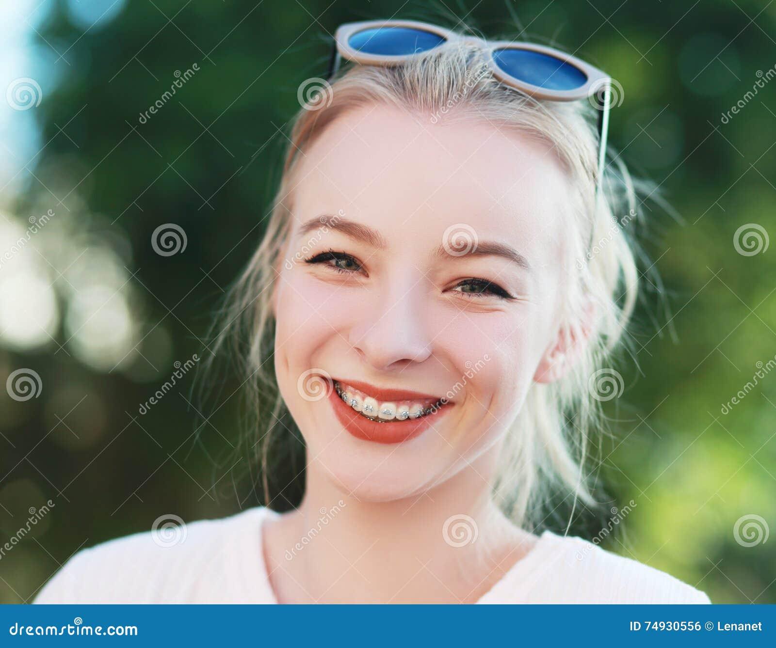 Braces on her teeth