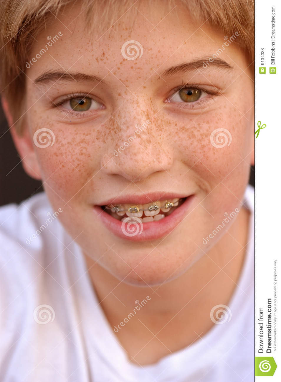 Braces With Smile Stock Photo. Image Of Dentist, Teeth