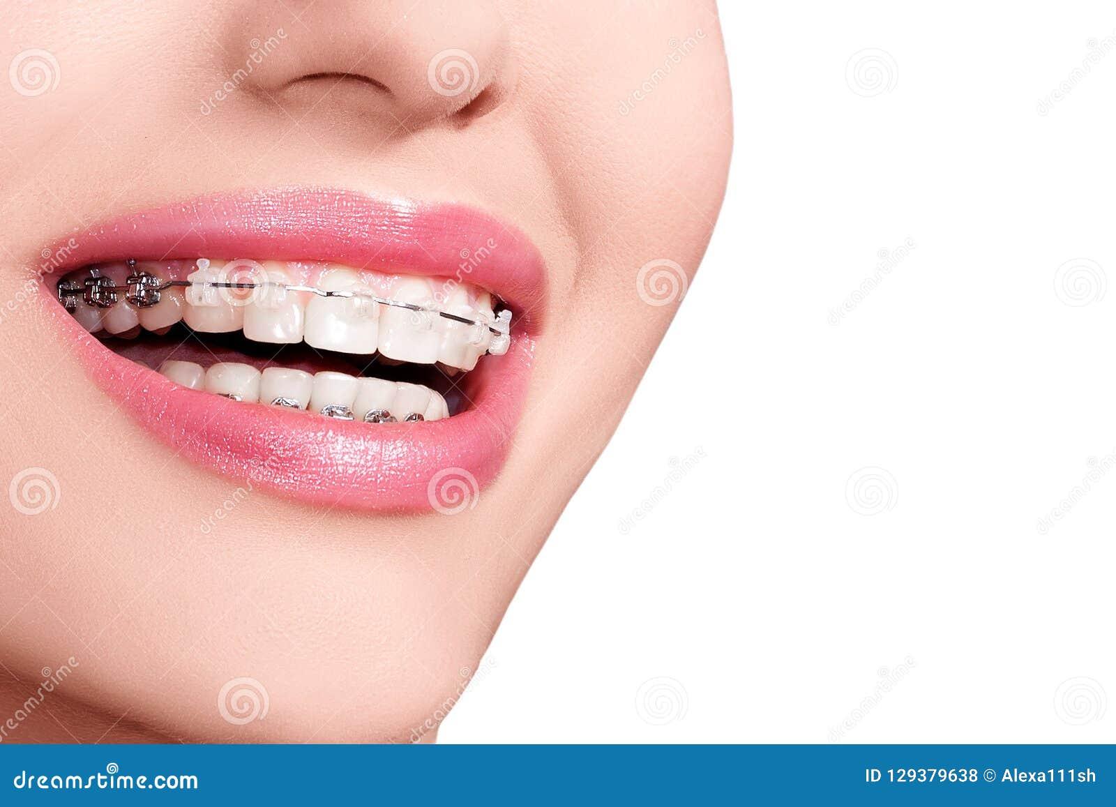 Braces teeth Οδοντικό χαμόγελο στηριγμάτων orthodontic επεξεργασία
