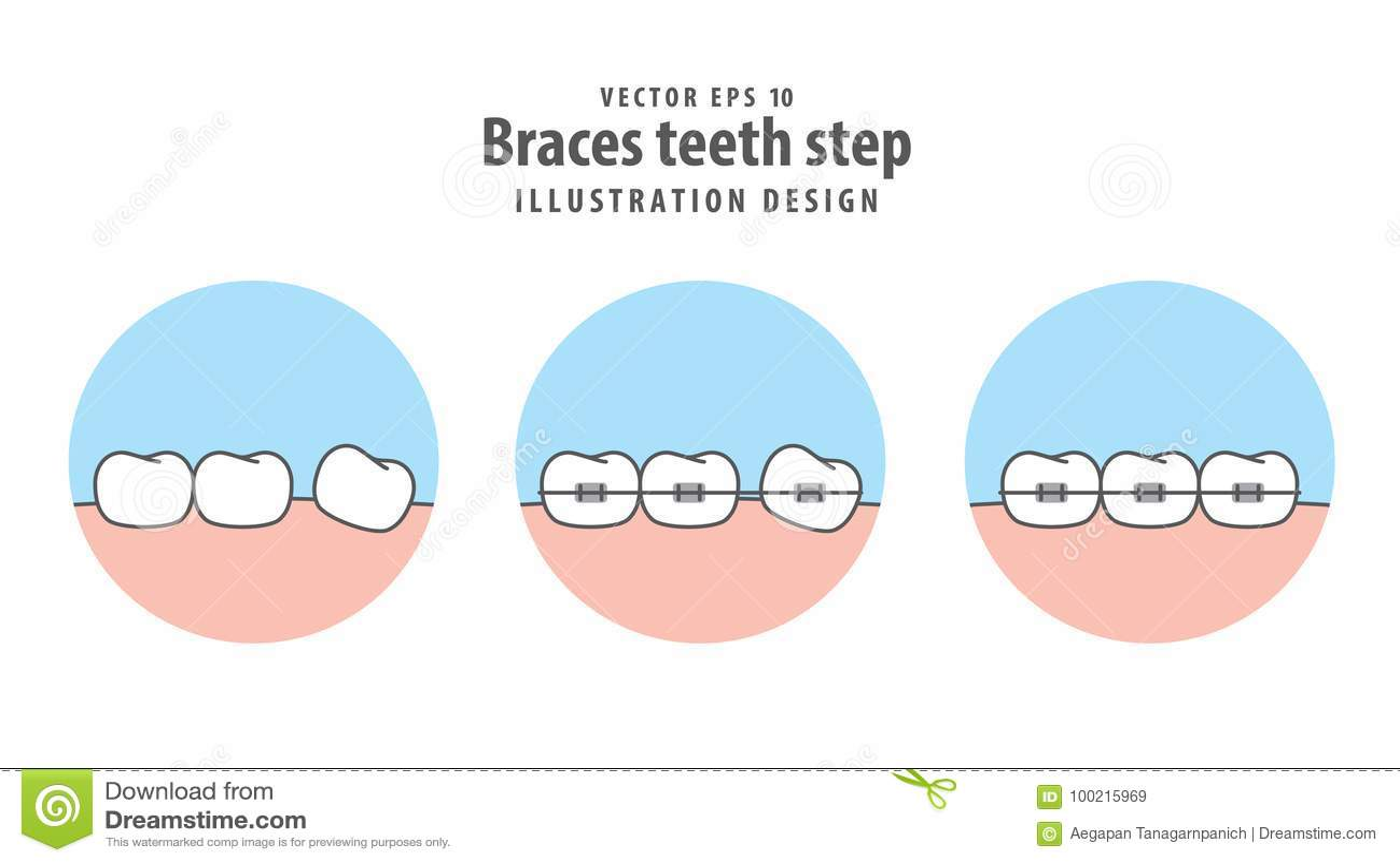 Braces teeth step in circle illustration vector on white stock braces teeth step in circle illustration vector on white ccuart Choice Image