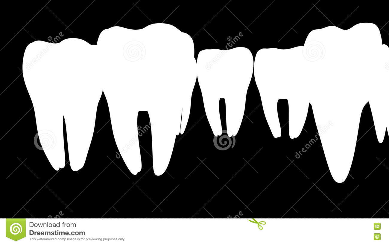 Brackets and tooth implant stock video. Illustration of care ...