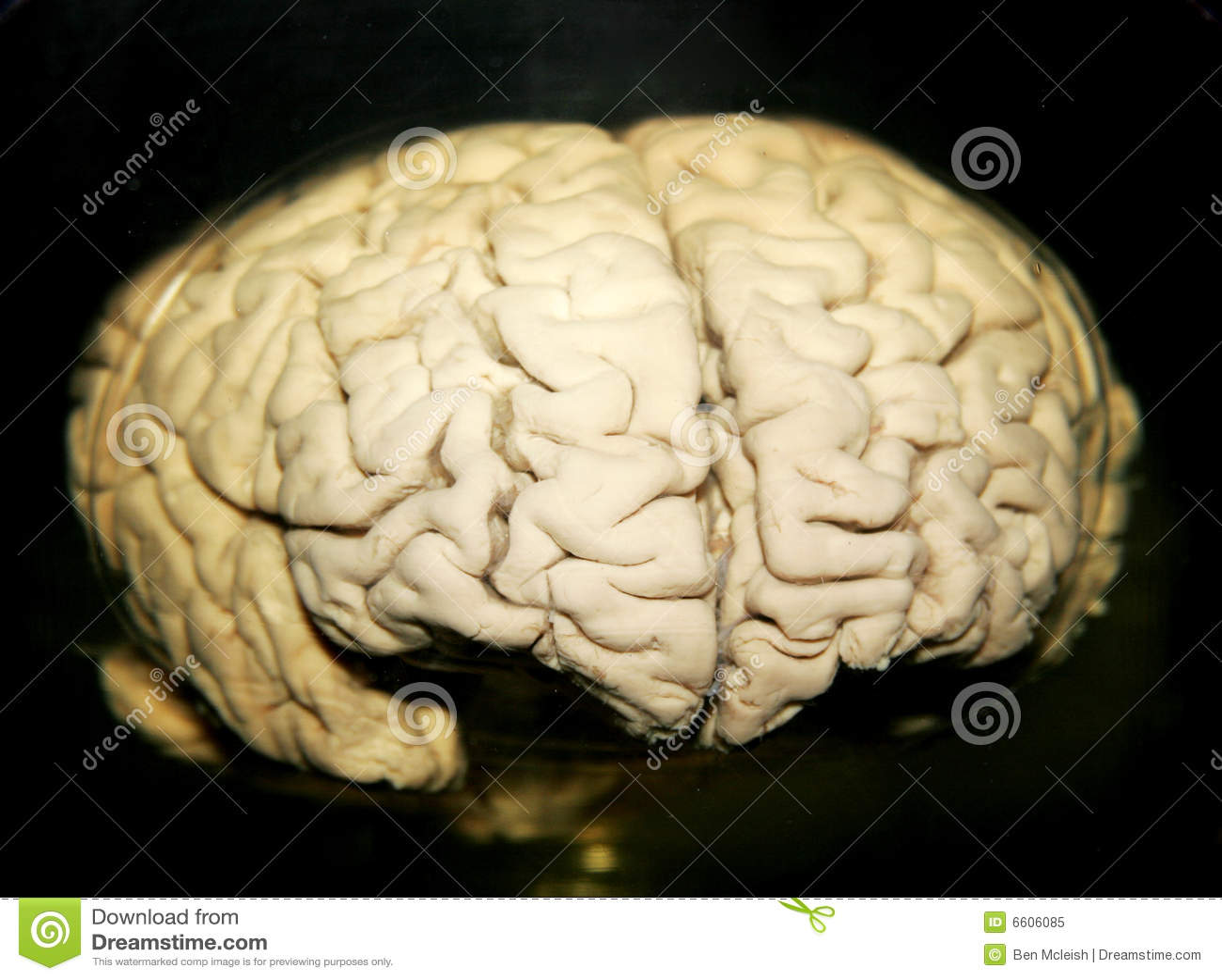 Brain Royalty Free Stock Photo - Image: 6606085