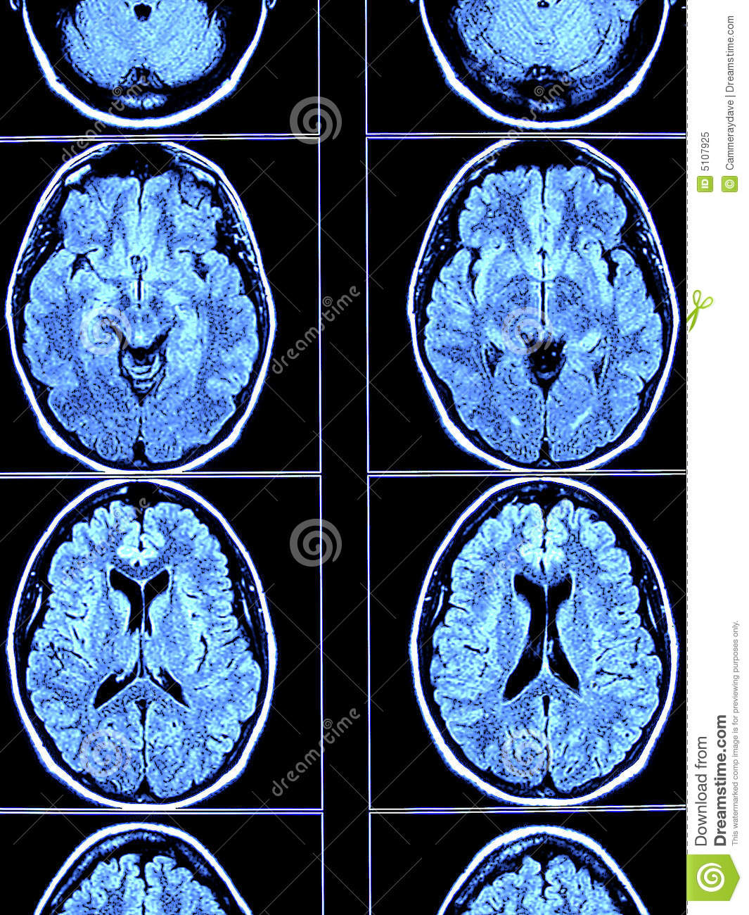 Brain CT Scan stock image. Image of skull, thought, bone - 5107925