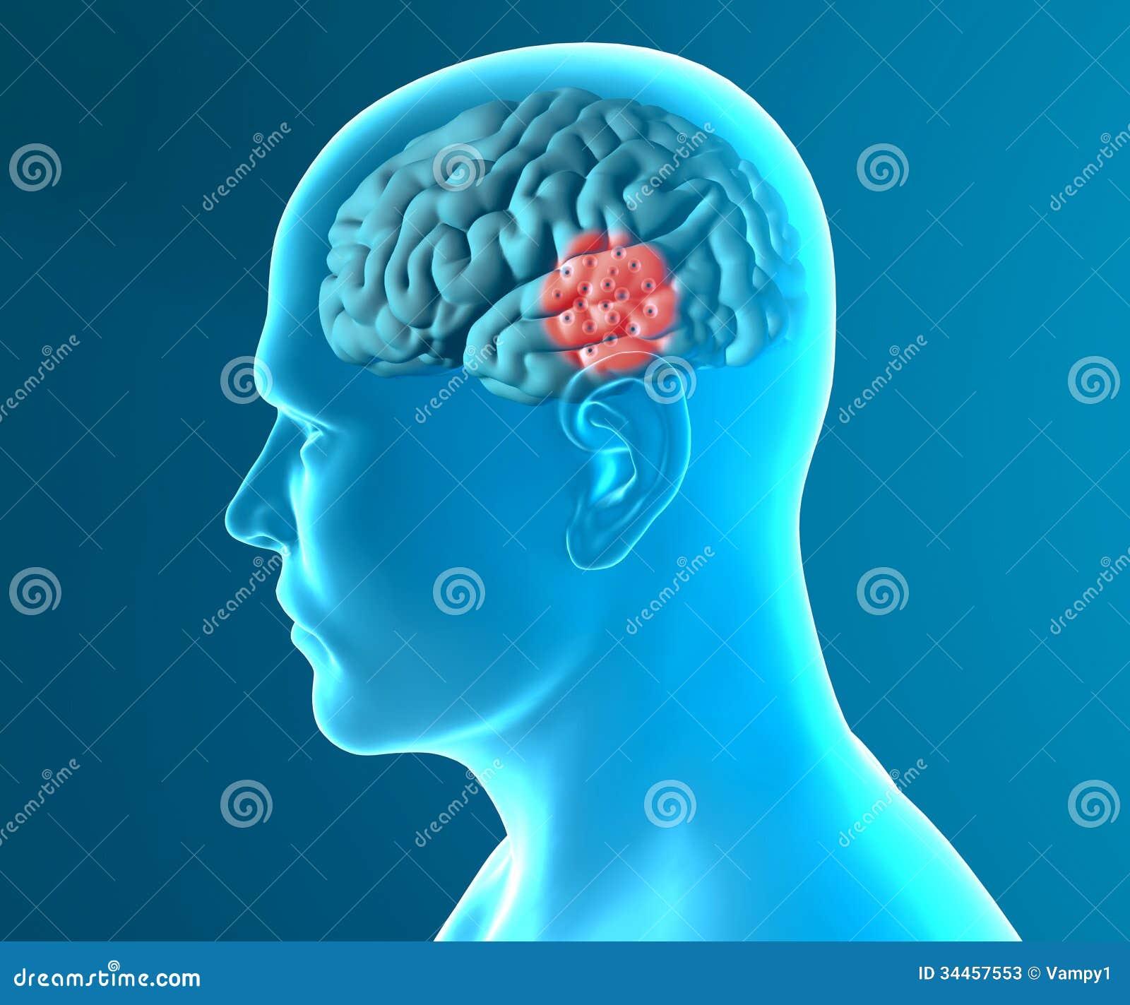 Brainpower РЅРѕРІРѕСЃРёР±РёСЂСЃРє image 1