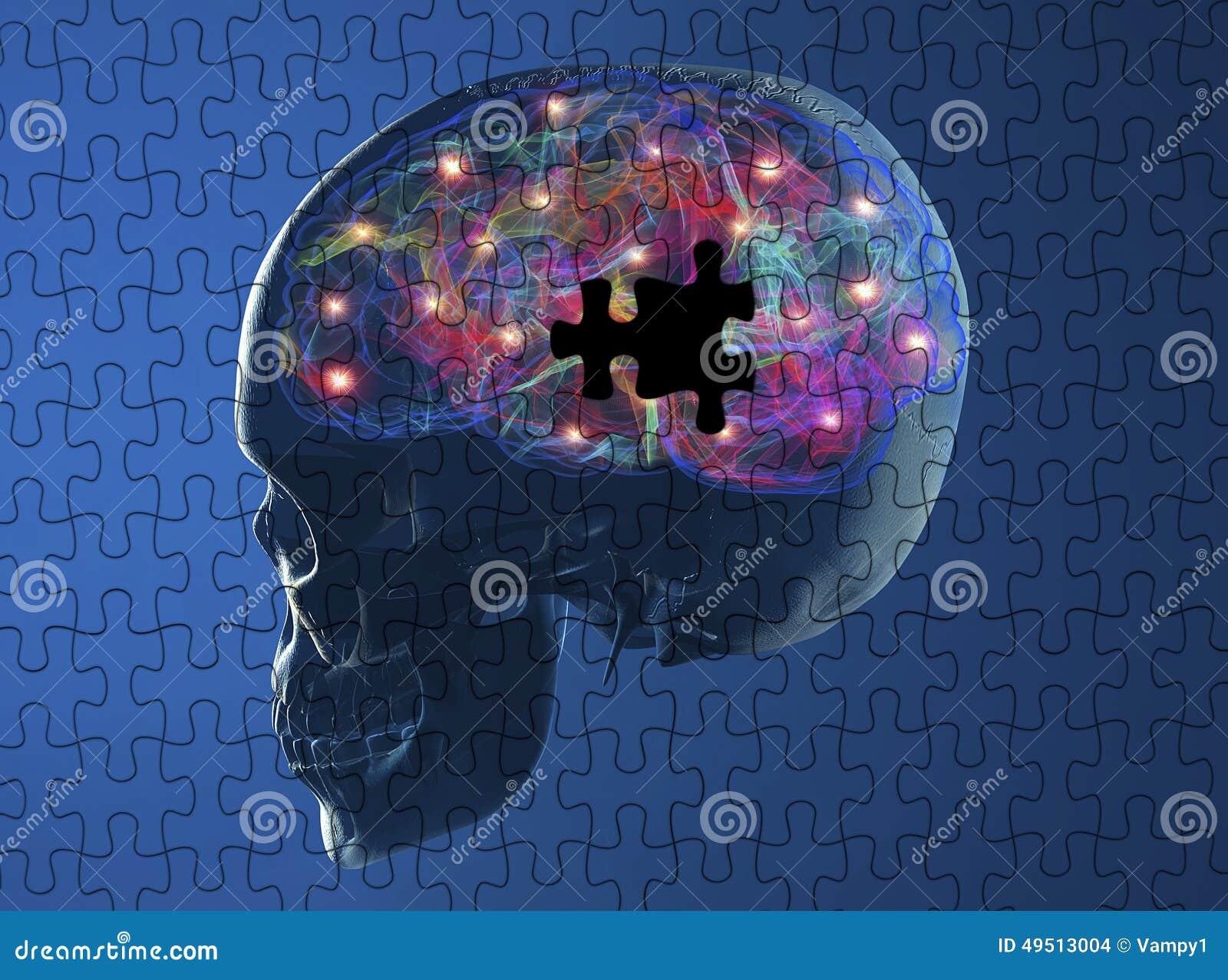 Brain degenerative diseases Parkinson, alzheimer