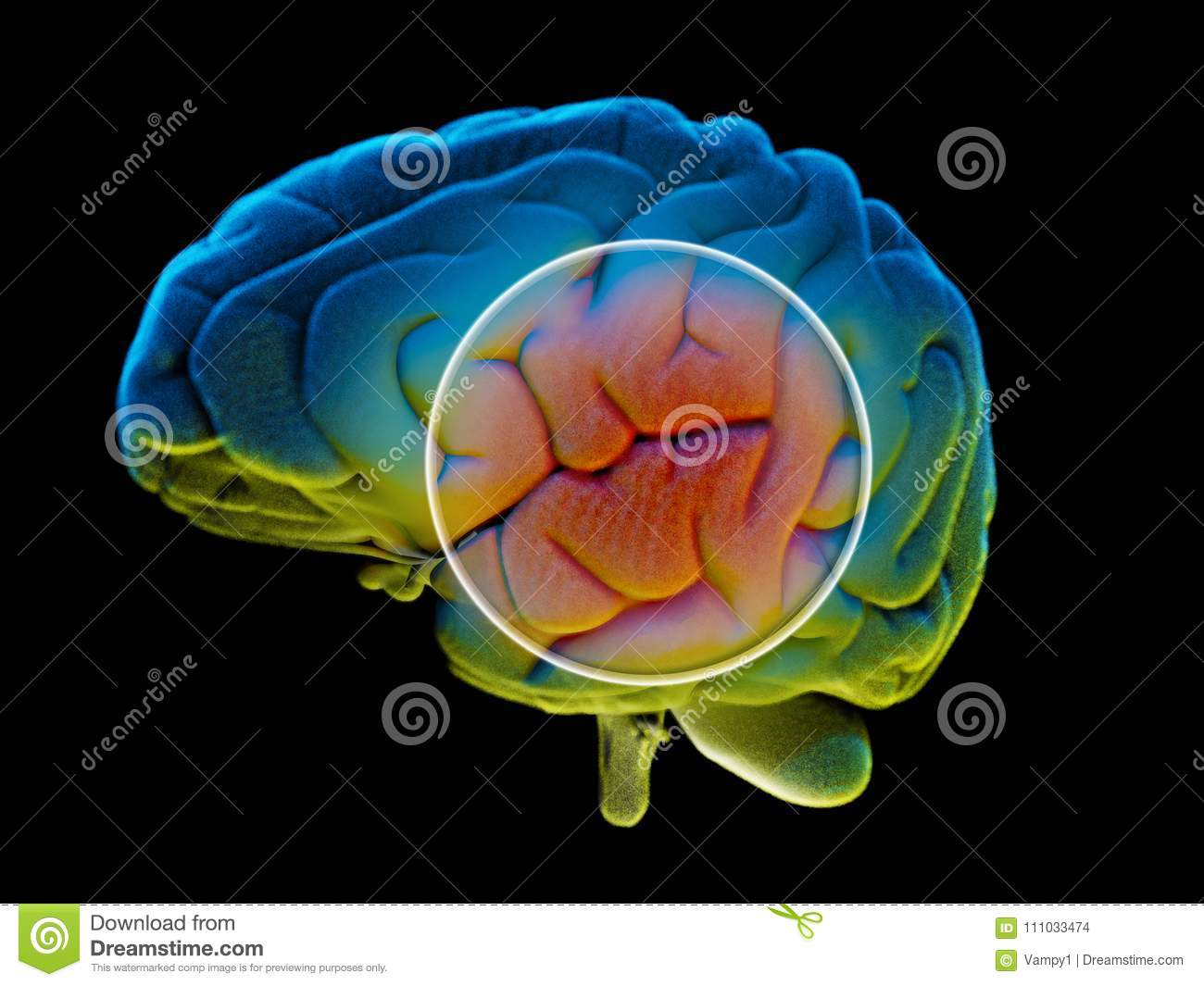 Brain degenerative diseases, Parkinson, synapses, neurons, Alzheimer`s