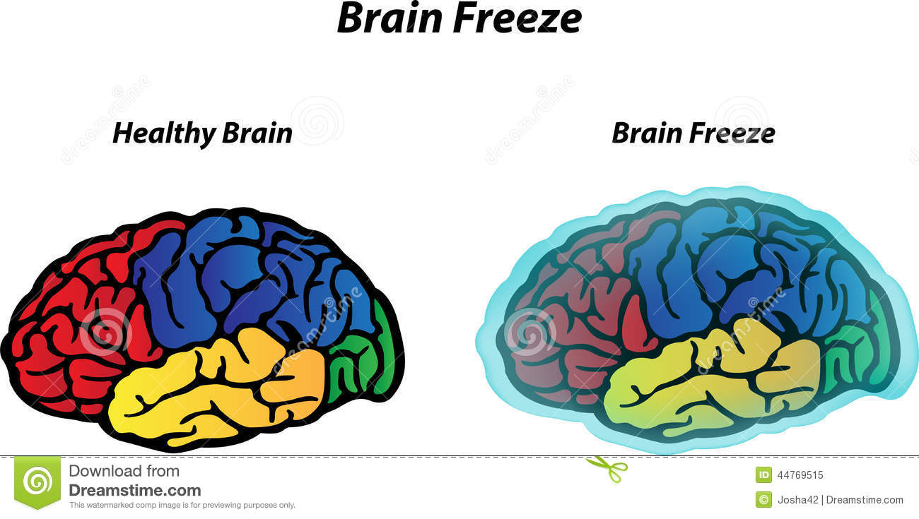 why we get a brain freeze