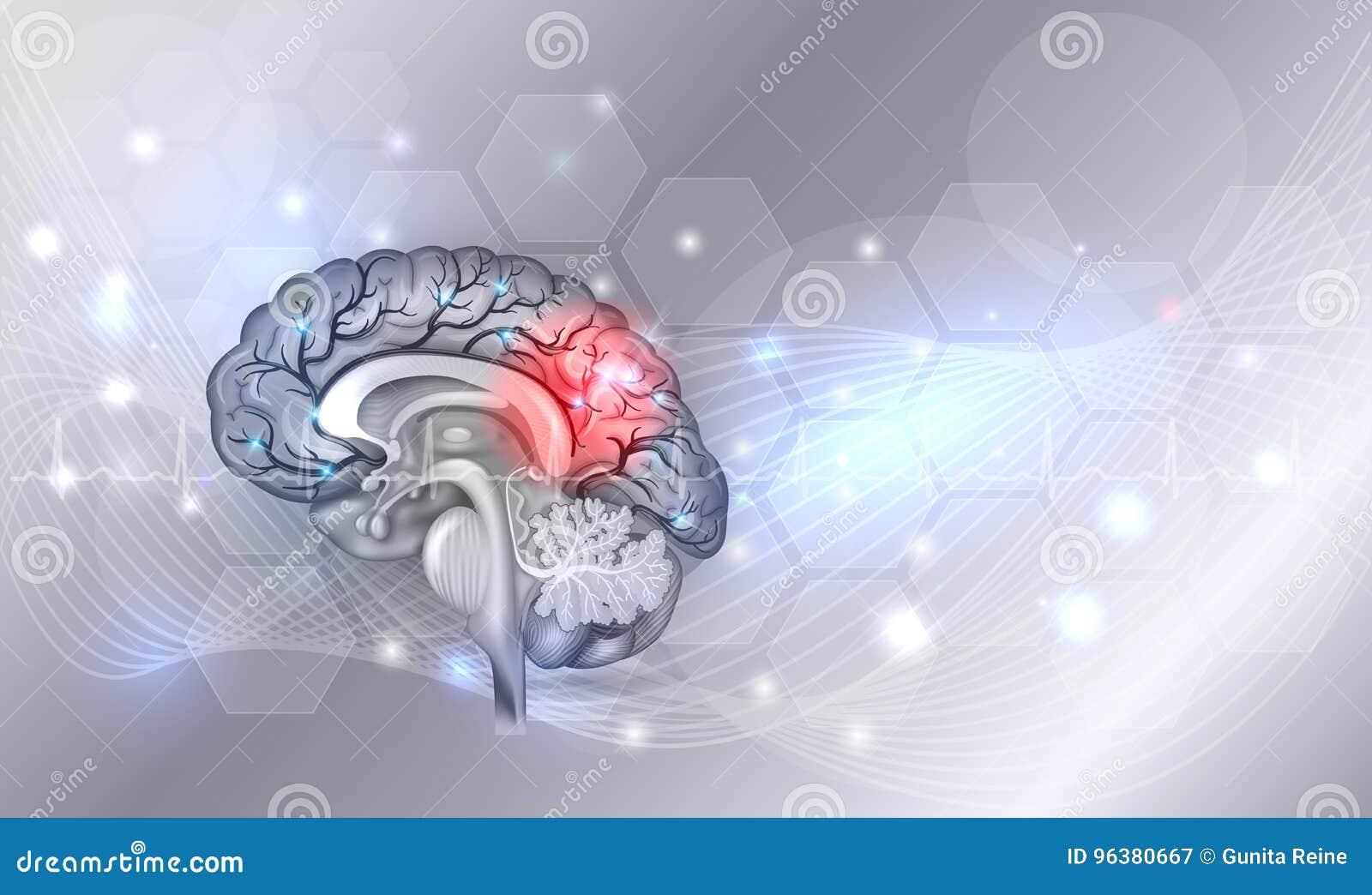 Brain problems