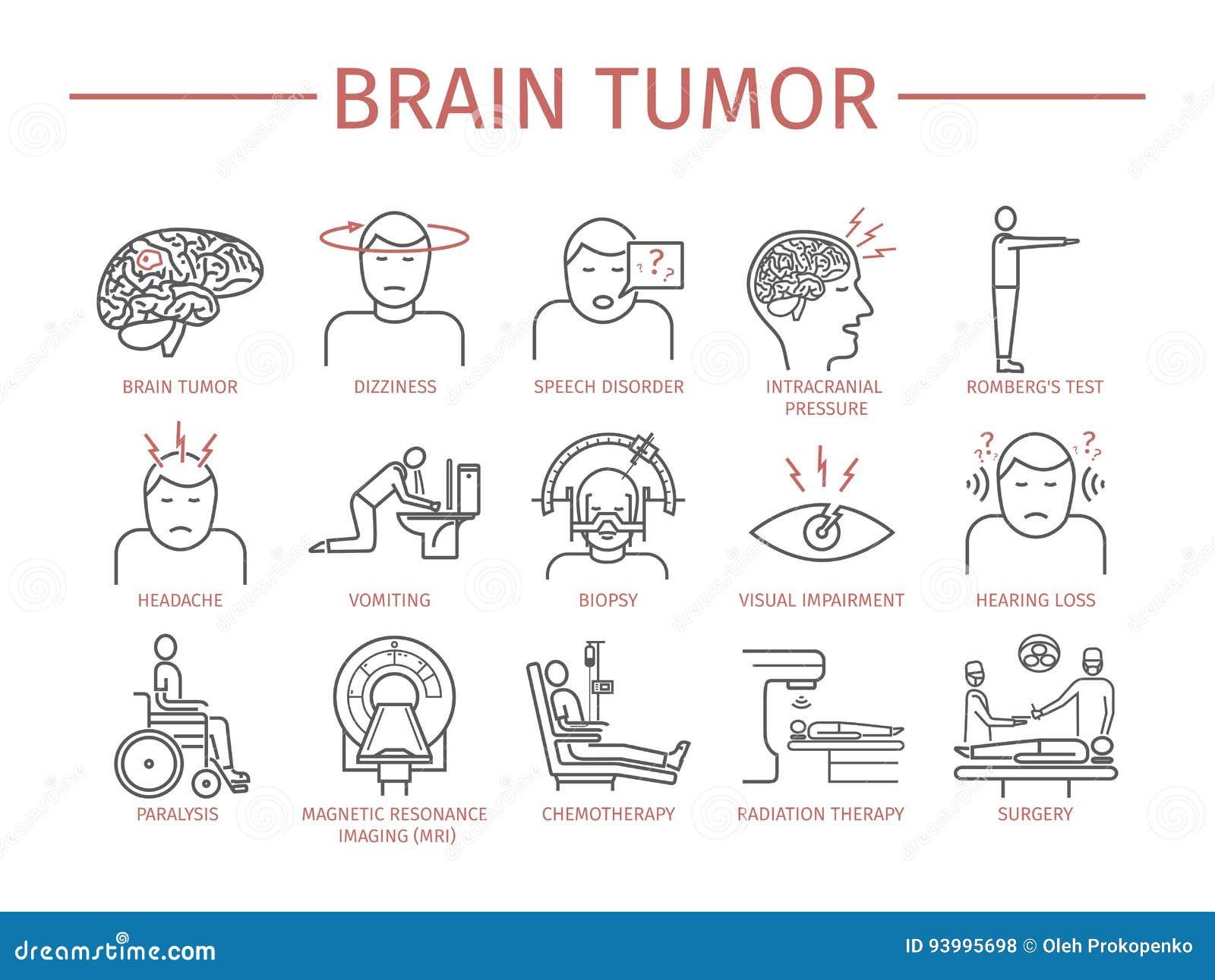 brain tumor cancer symptoms