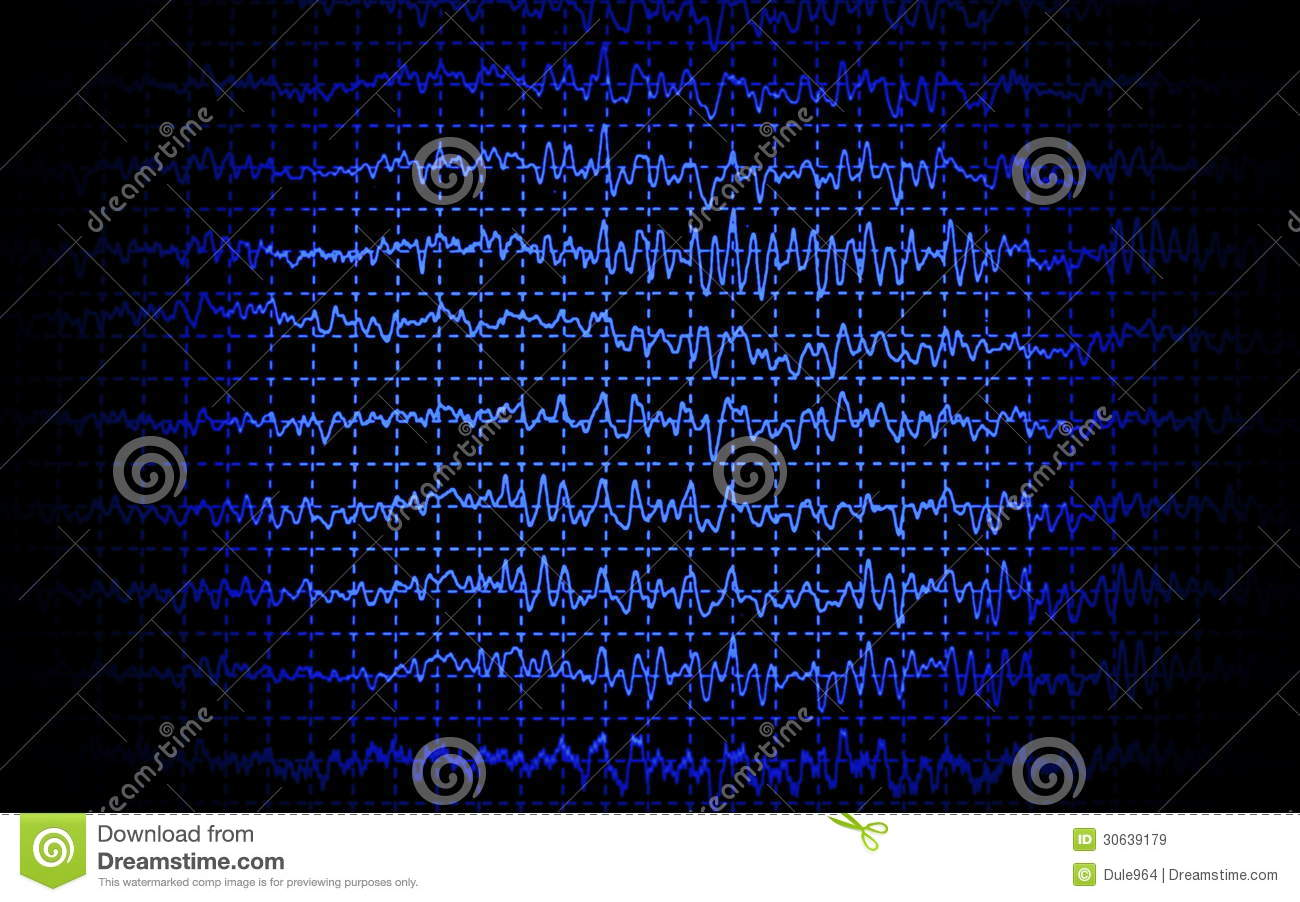 Brain Wave Eeg Isolated Stock Illustration  Illustration
